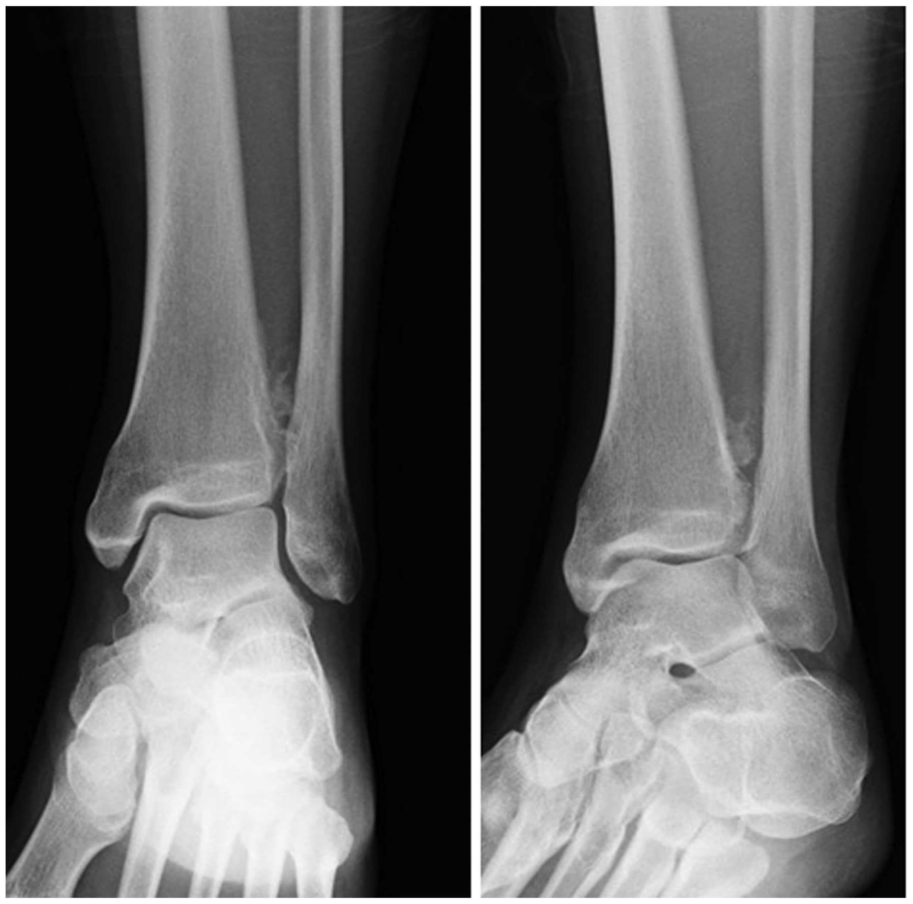 Periosteal chondroma of the distal tibia: Computed tomography and