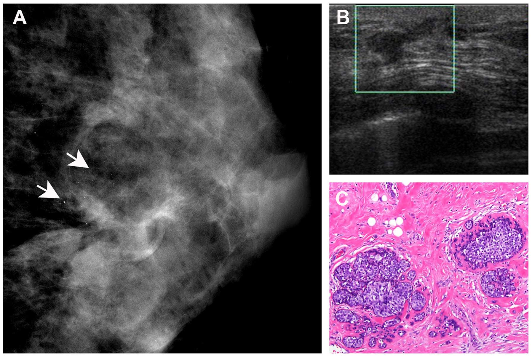A 35-year-old breast cancer patient with residual disease of the left breast  following lumpectomy. (A) Mammography revealed heterogeneously dense breast  ...