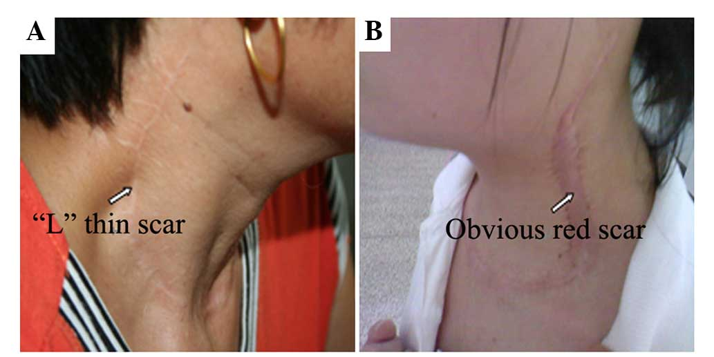 Application Of A Cervical Low Incision In The Functional Neck