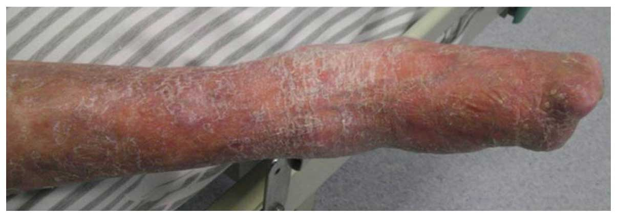 Development of multiple malignancies following long‑term ...