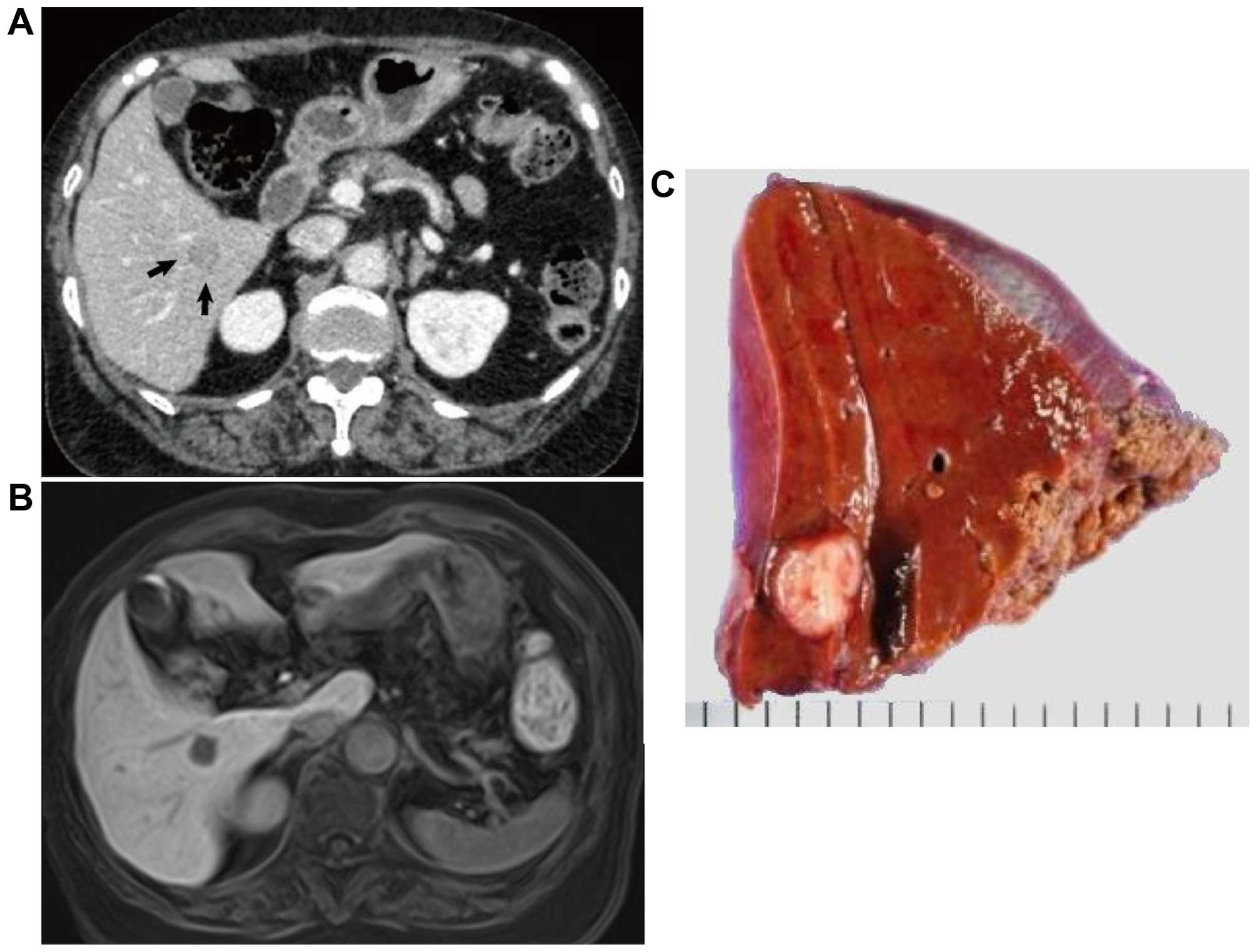 A Abdominal Computed Tomography Revealed A 15 Mm Tumor At Segment Vi In The Liver Arrows B The Tumor Was Detected As A Hypointense Lesion On