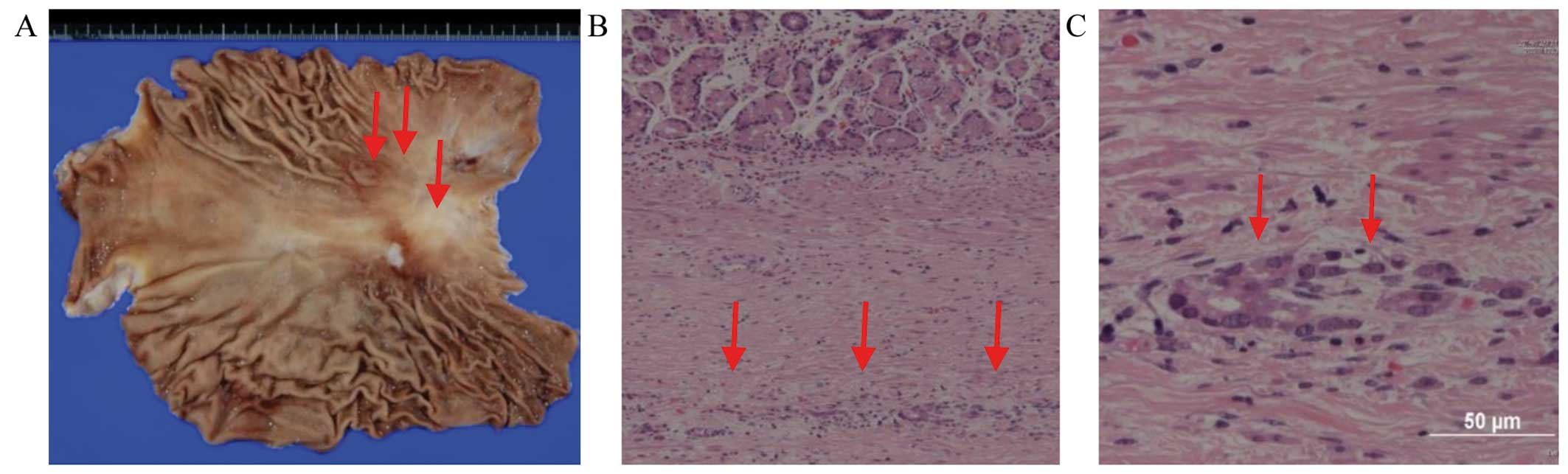 Conversion therapy of gastric cancer with massive malignant ascites
