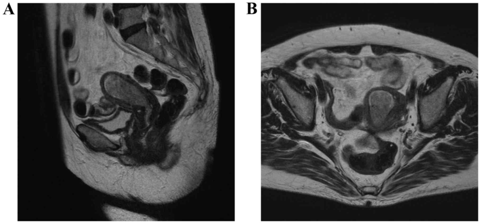 endometrial cancer on mri