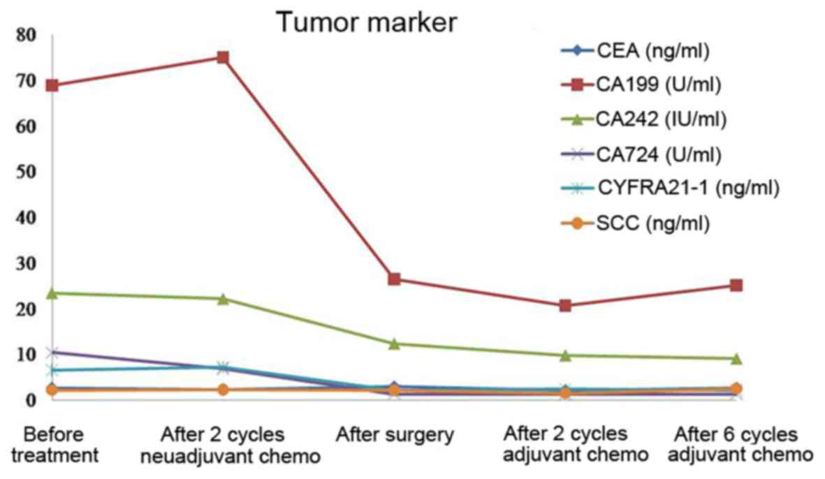 Gemcitabine Based Chemotherapy In Colon Squamous Cell Carcinoma A Case Report And Literature Review