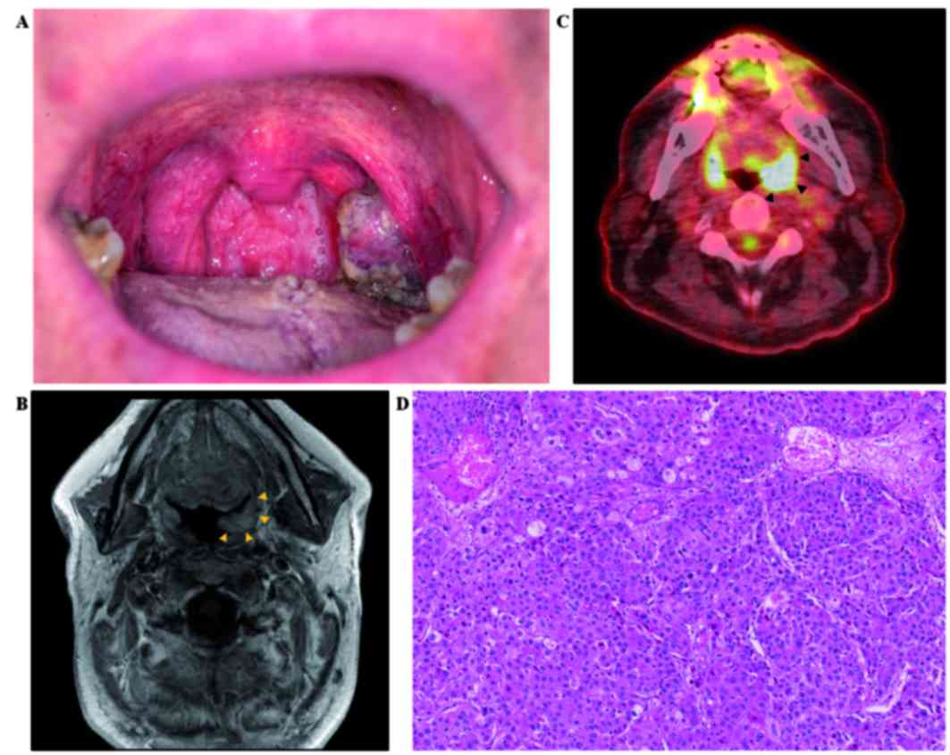 Hepatoid adenocarcinoma of the lung metastasizing to the tonsil