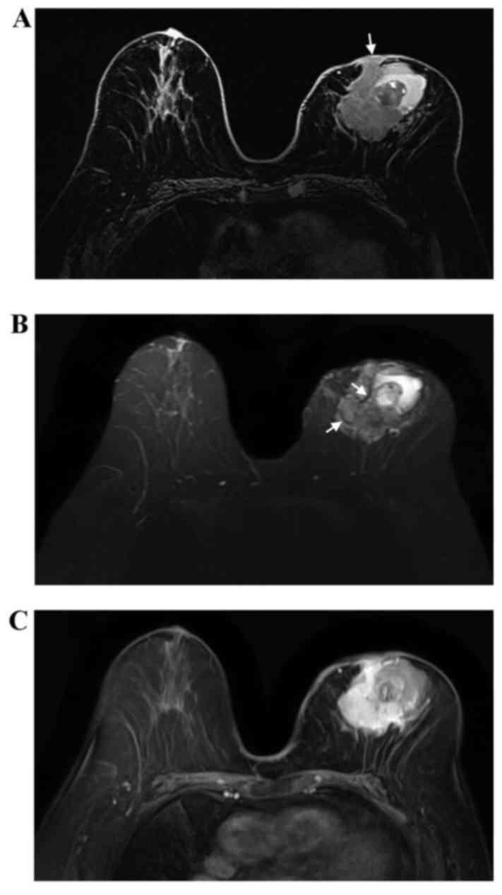 adenoid cystic carcinoma mri