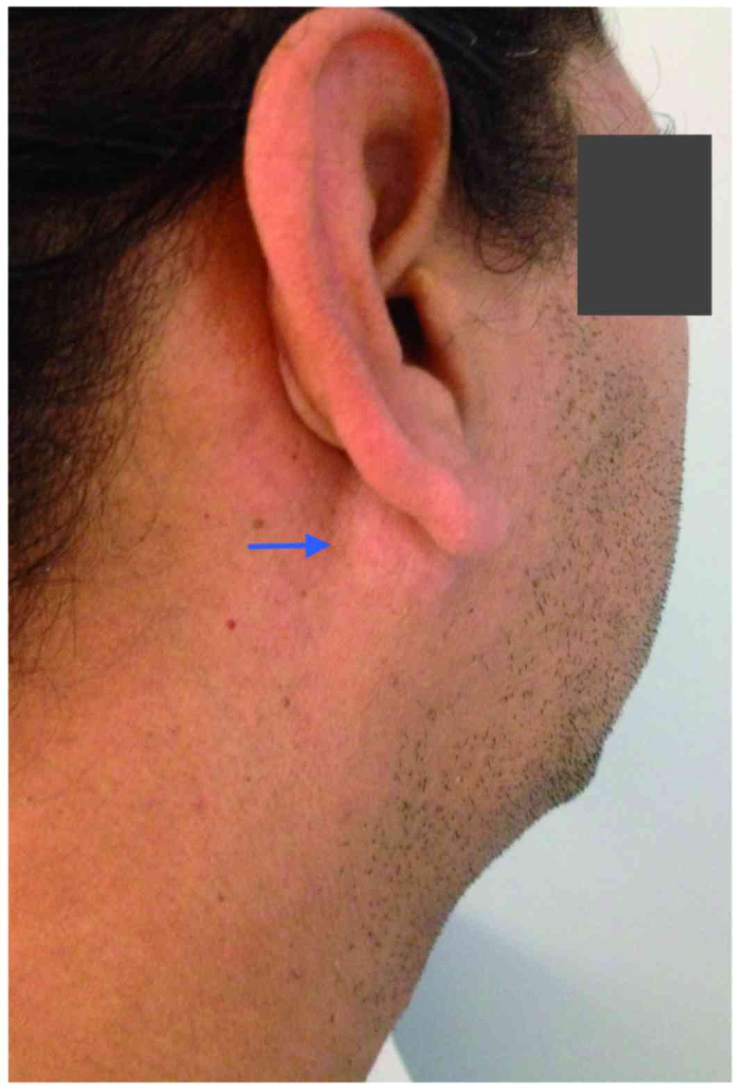 Primary extraosseous plasmacytoma of the parotid gland: A