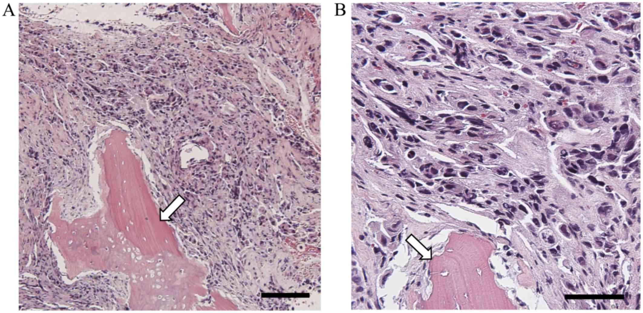 Breast cancer and bone marrow