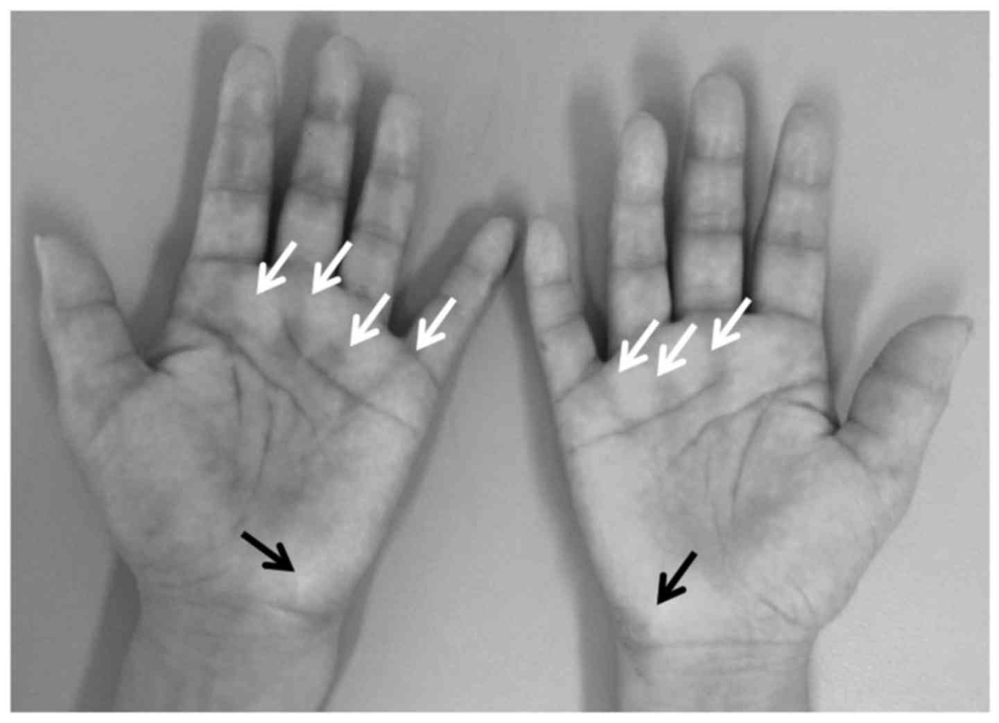 Palmar Fasciitis With Polyarthritis Associated Ovarian Cancer Case Report And Literature Review