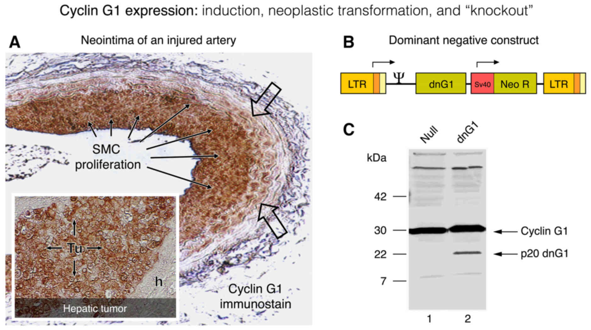 Cell Cycle Checkpoint Control The Cyclin G1 Mdm2 P53 Axis Emerges Likewise Worm Drive Diagram On Vector Alternating Current Design Of A Dominant Negative Knockout Construct P20 Dng1 Is Shown In Context Its Momulv Retroviral Expression B