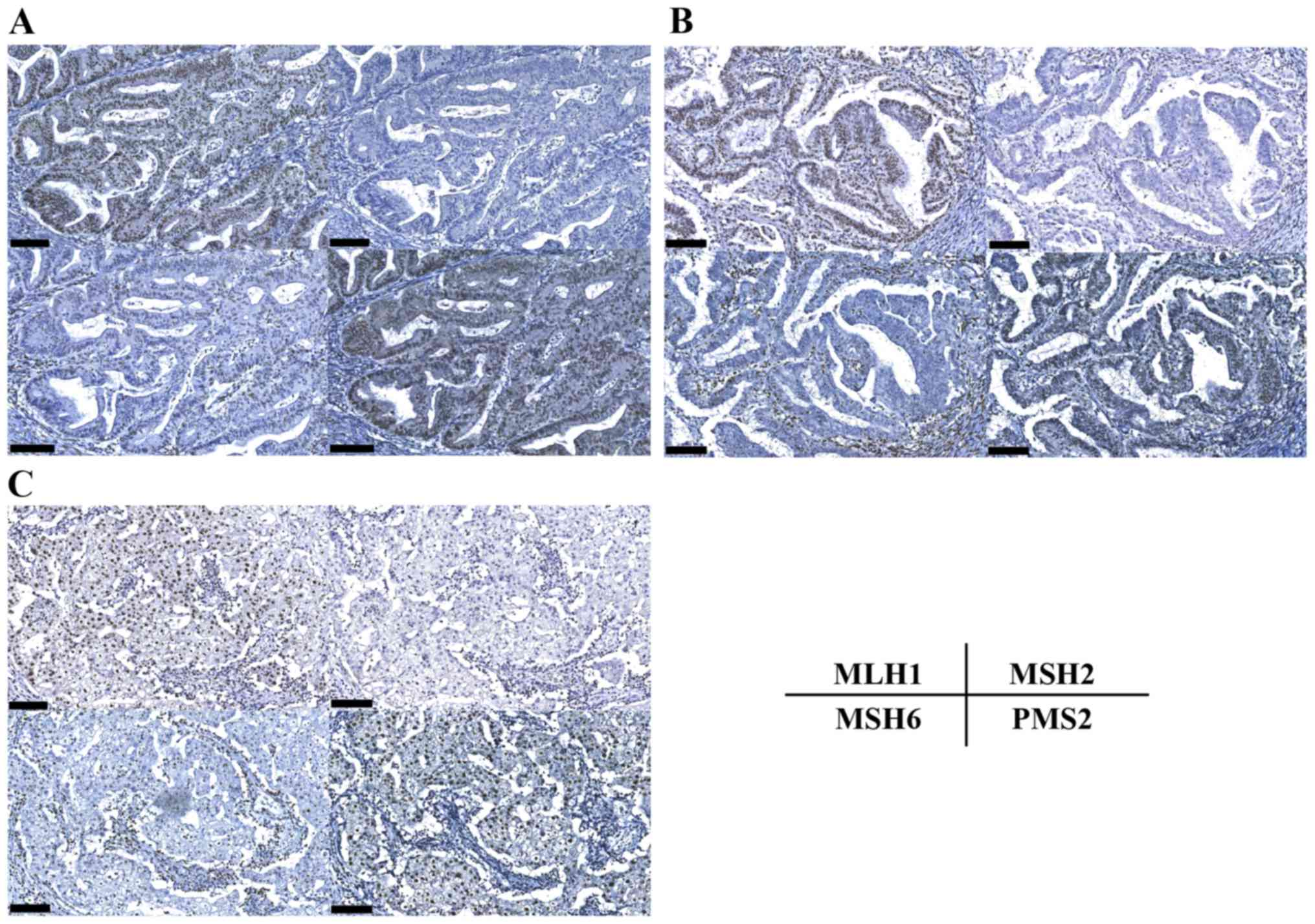 Synchronous Endometrial And Ovarian Cancer In Lynch Syndrome With A Msh2 Germline Mutation A Case Report