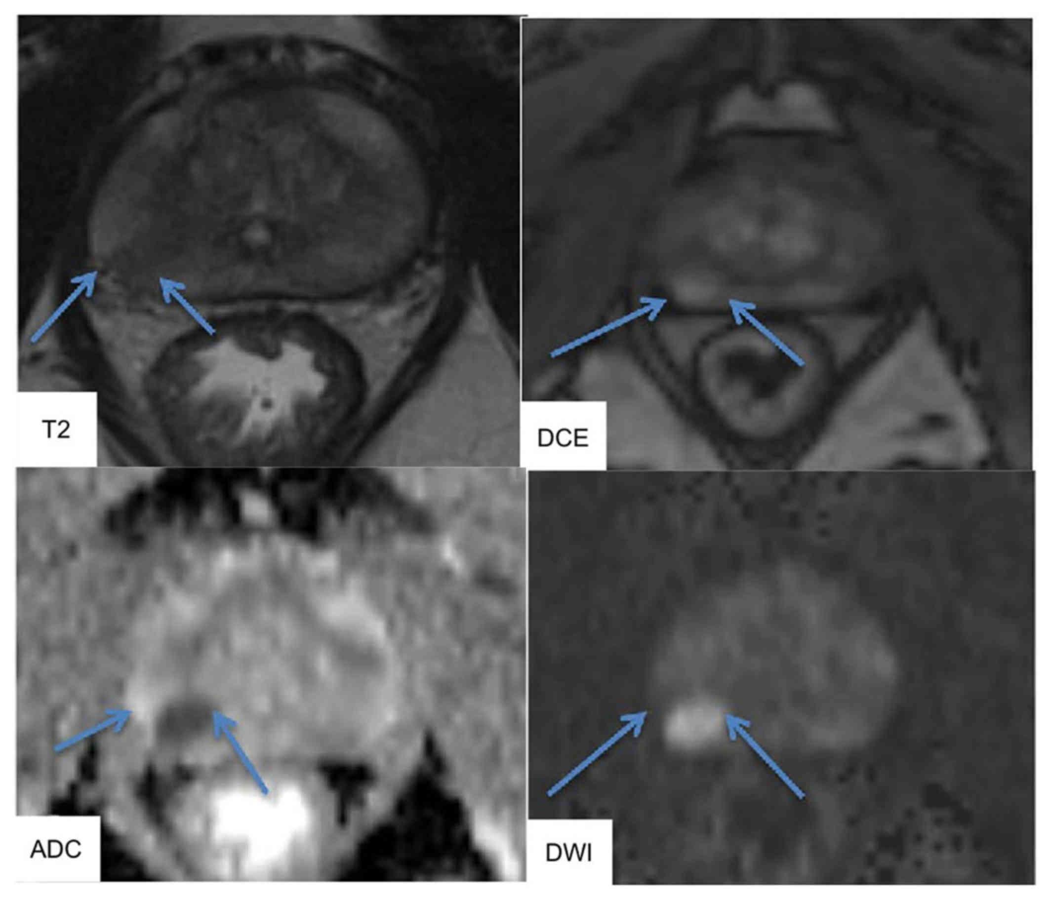 prostata dwi