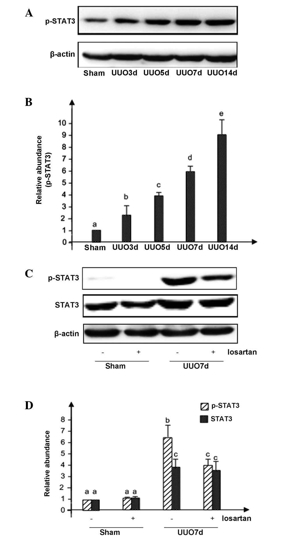 Losartan Attenuates Renal Interstitial Fibrosis And Tubular Cell Apoptosis In A Rat Model Of Obstructive Nephropathy