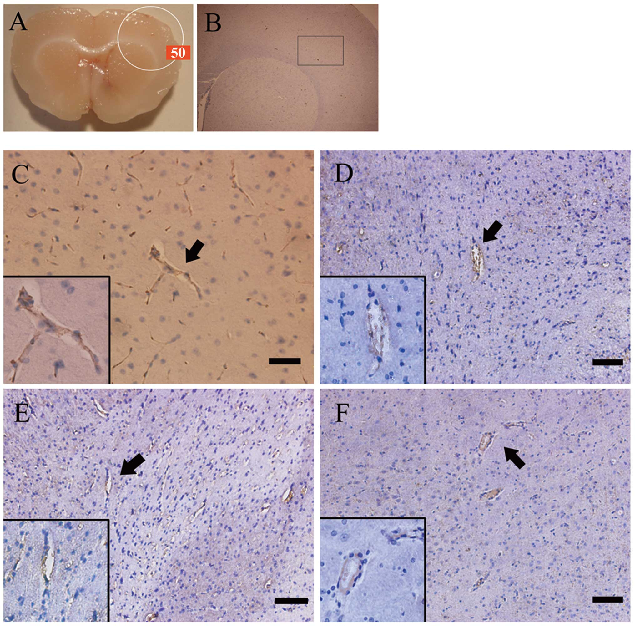 evaluating post irradiation tissue alterations Orthopedic tissue bone matrix post-irradiation these alterations in osteoclast matrix post-irradiation highlights the importance of.