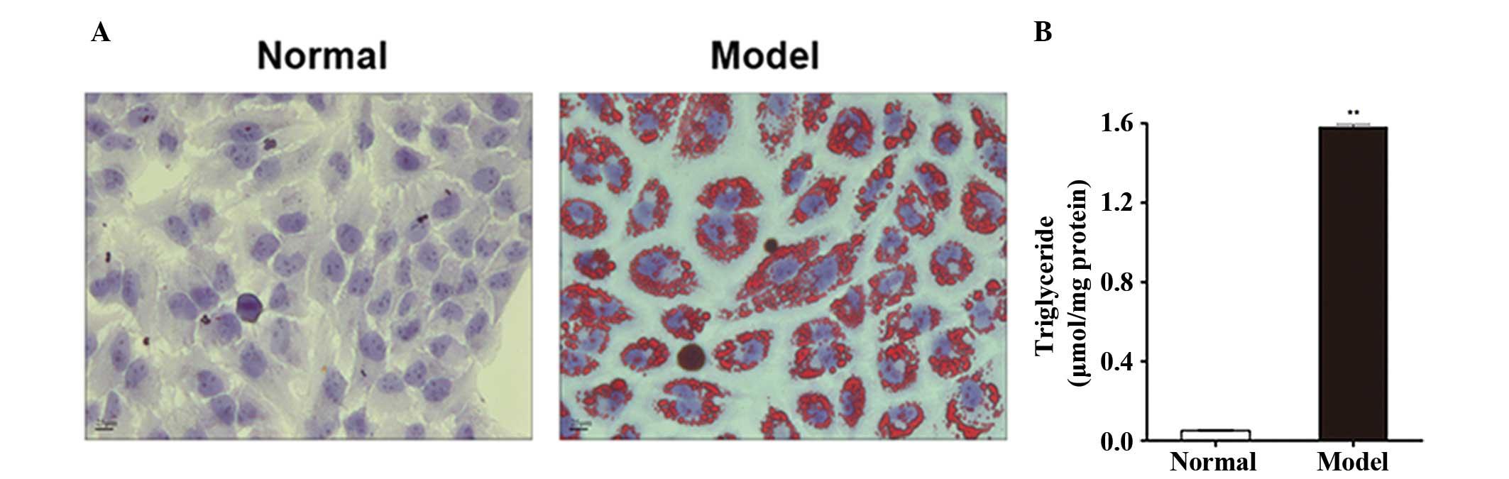 Liraglutide Reduces Lipid Accumulation In Steatotic L‑02