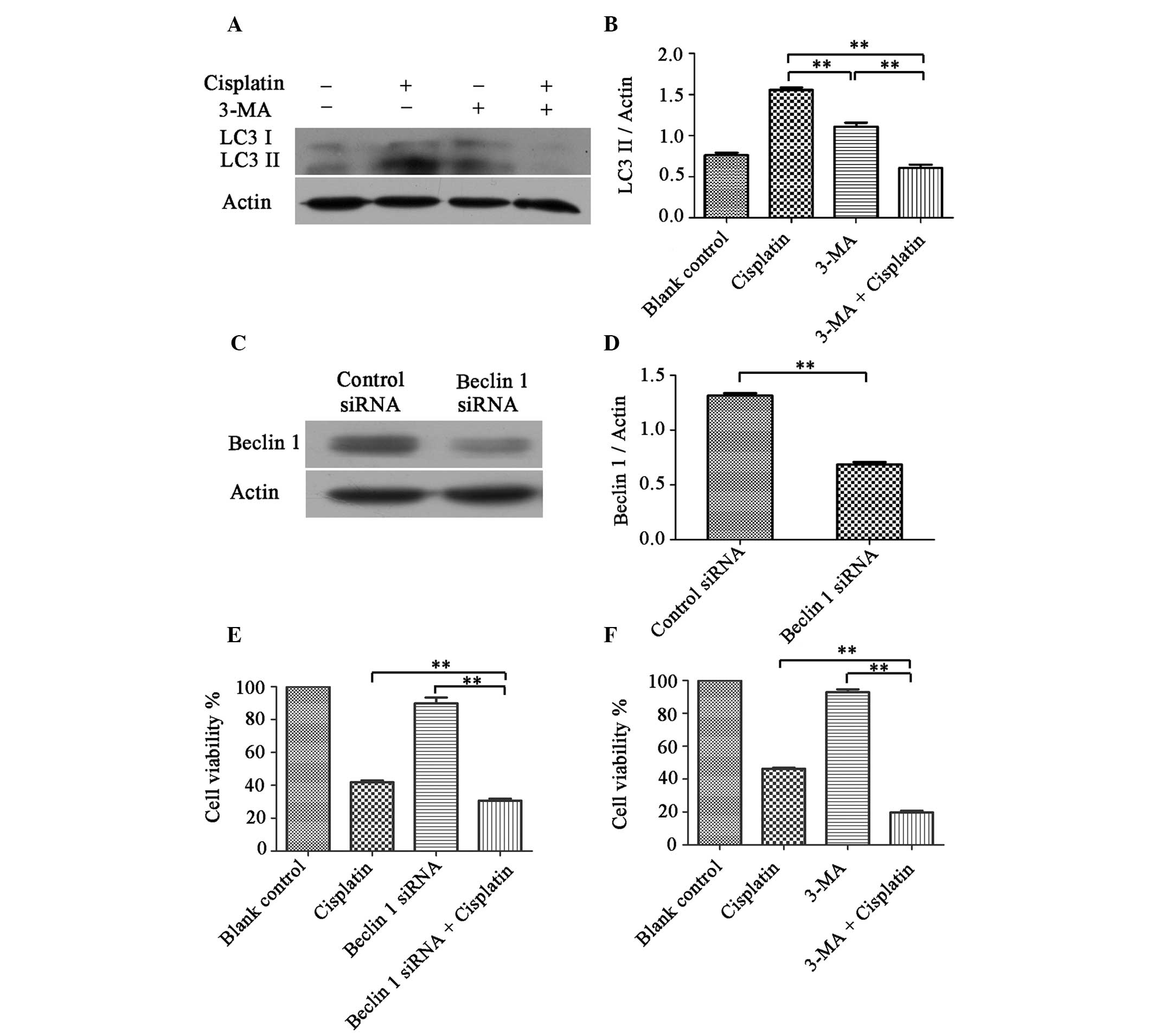 Induction Of Autophagy Contributes To Cisplatin Resistance In Human Ovarian Cancer Cells