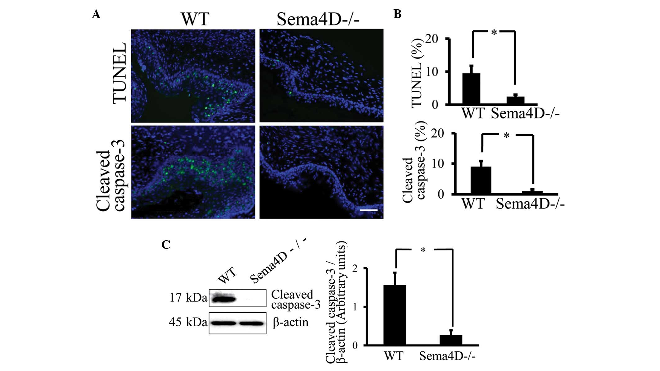 Semaphorin 4D induces vaginal epithelial cell apoptosis to