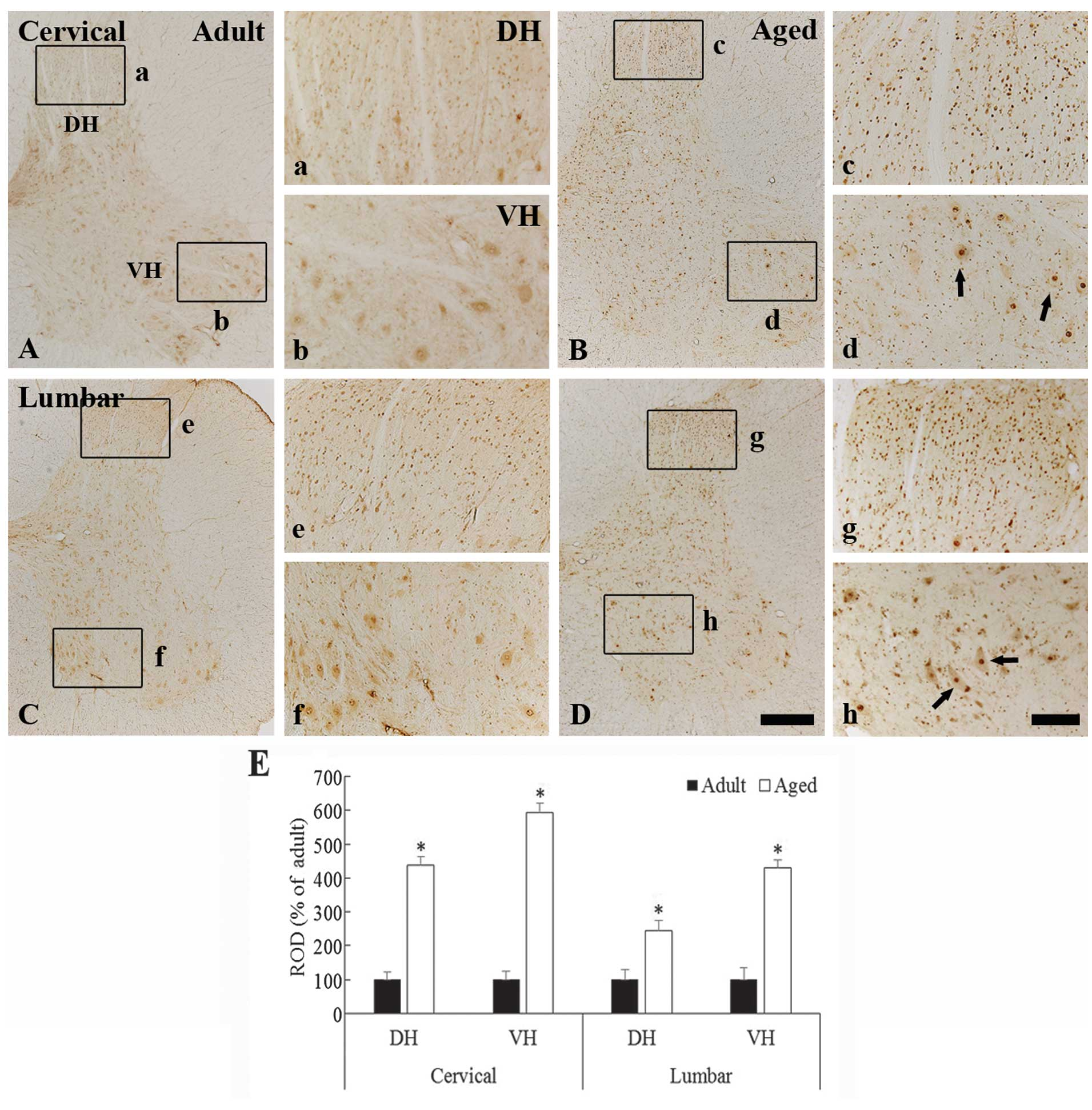 Increased Immunoreactivity Of Cfos In The Spinal Cord Of The Aged