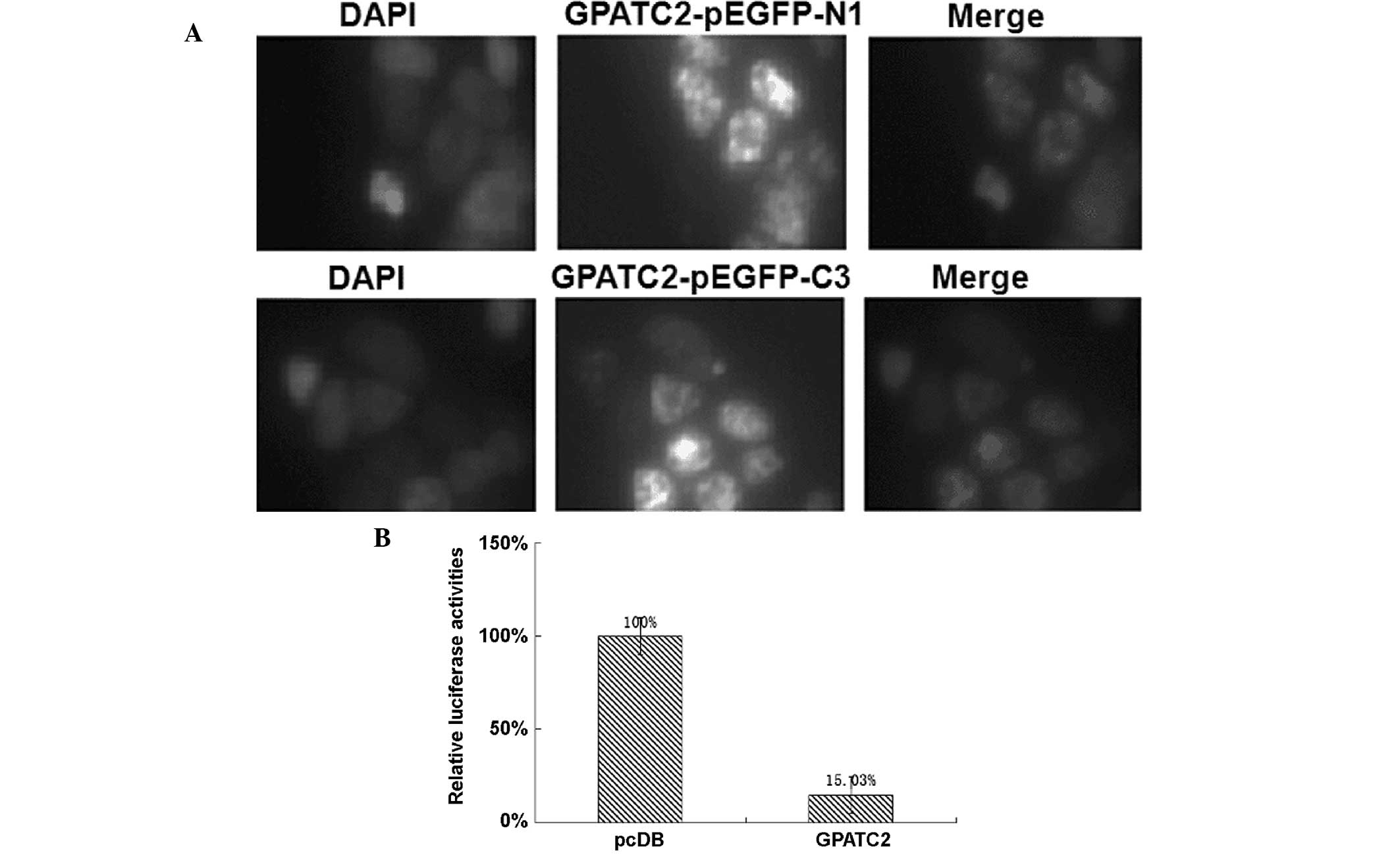 G patch domain containing 2 a gene highly expressed in testes