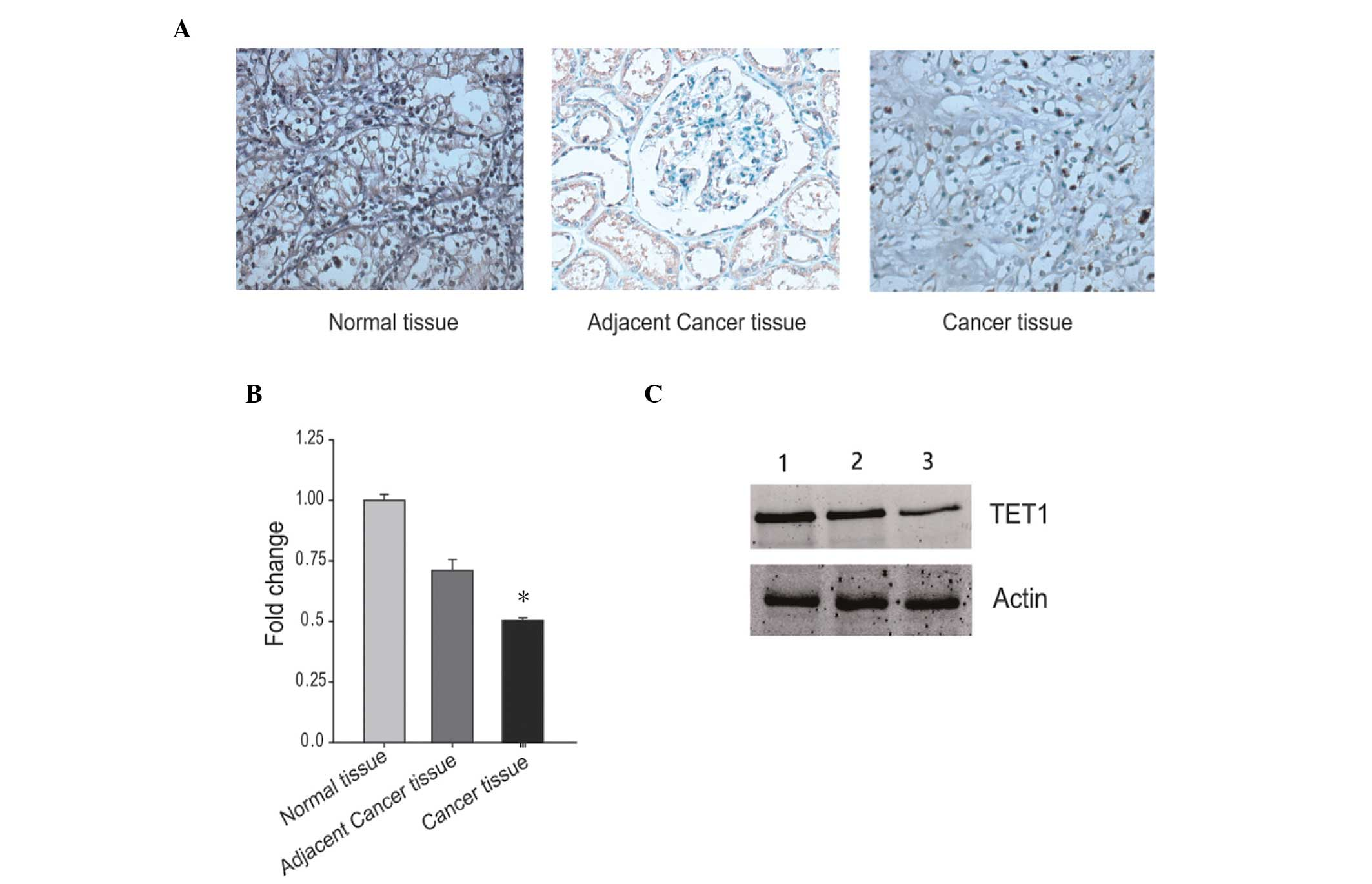 Restored Expression Levels Of Tet1 Decrease The Proliferation And Migration Of Renal Carcinoma Cells