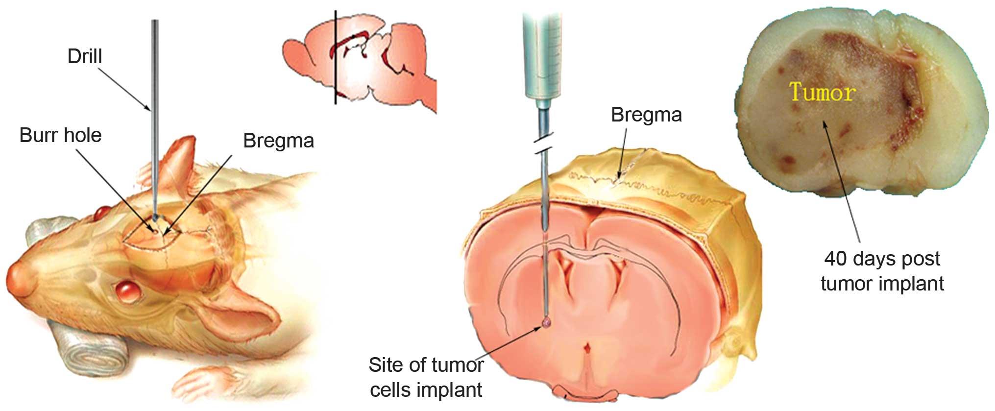 A novel brain metastasis xenograft model for convection‑enhanced ...