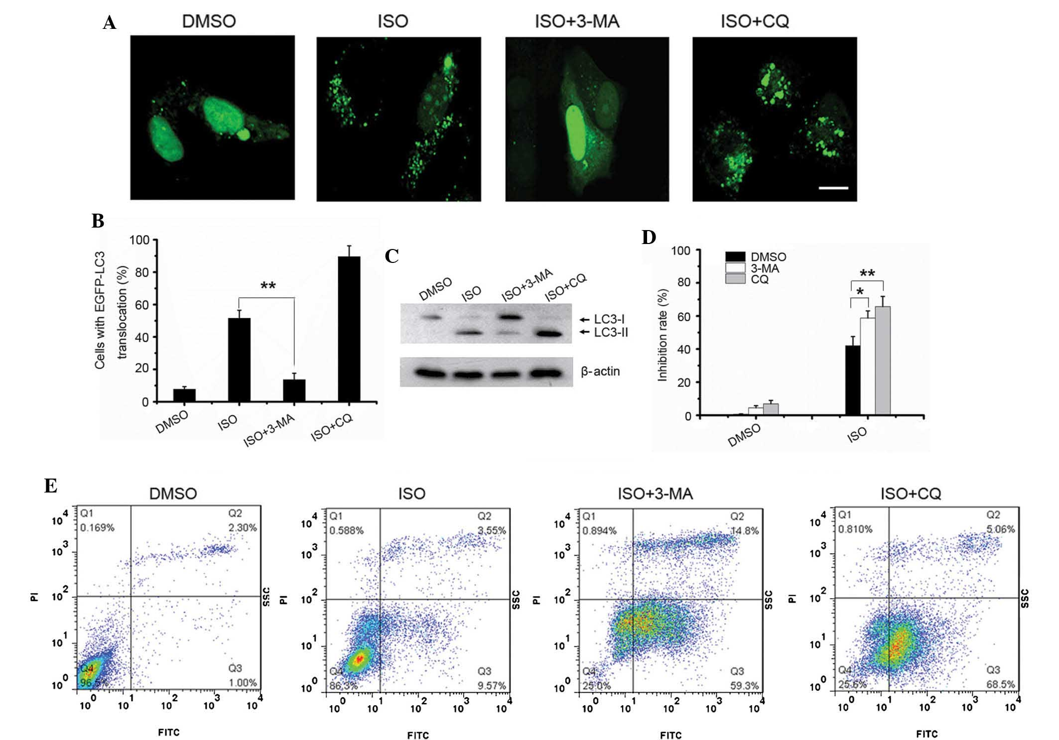 Chloroquine inhibits hepatocellular carcinoma cell growth
