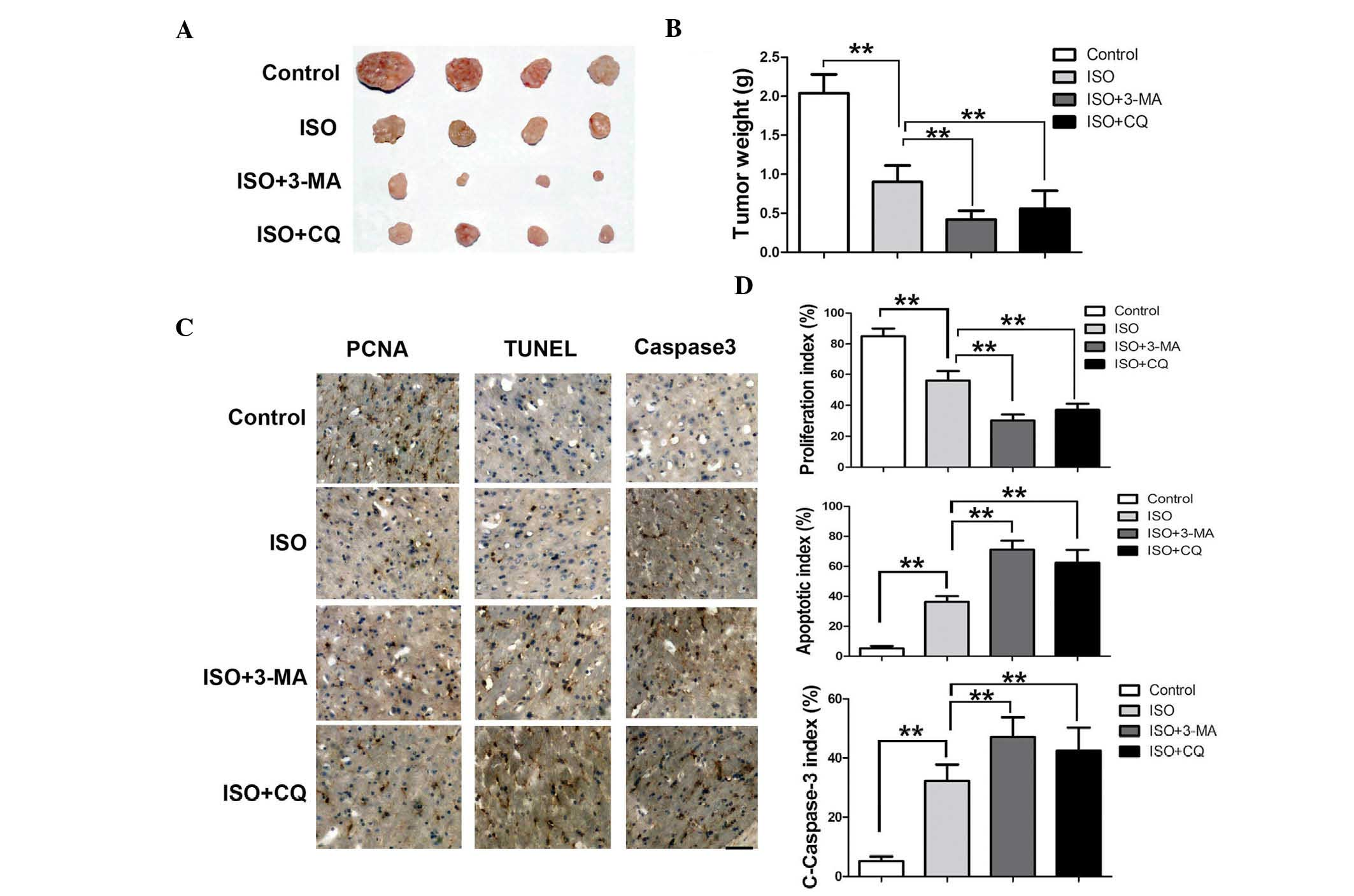 Autophagy inhibition enhances isorhamnetin‑induced