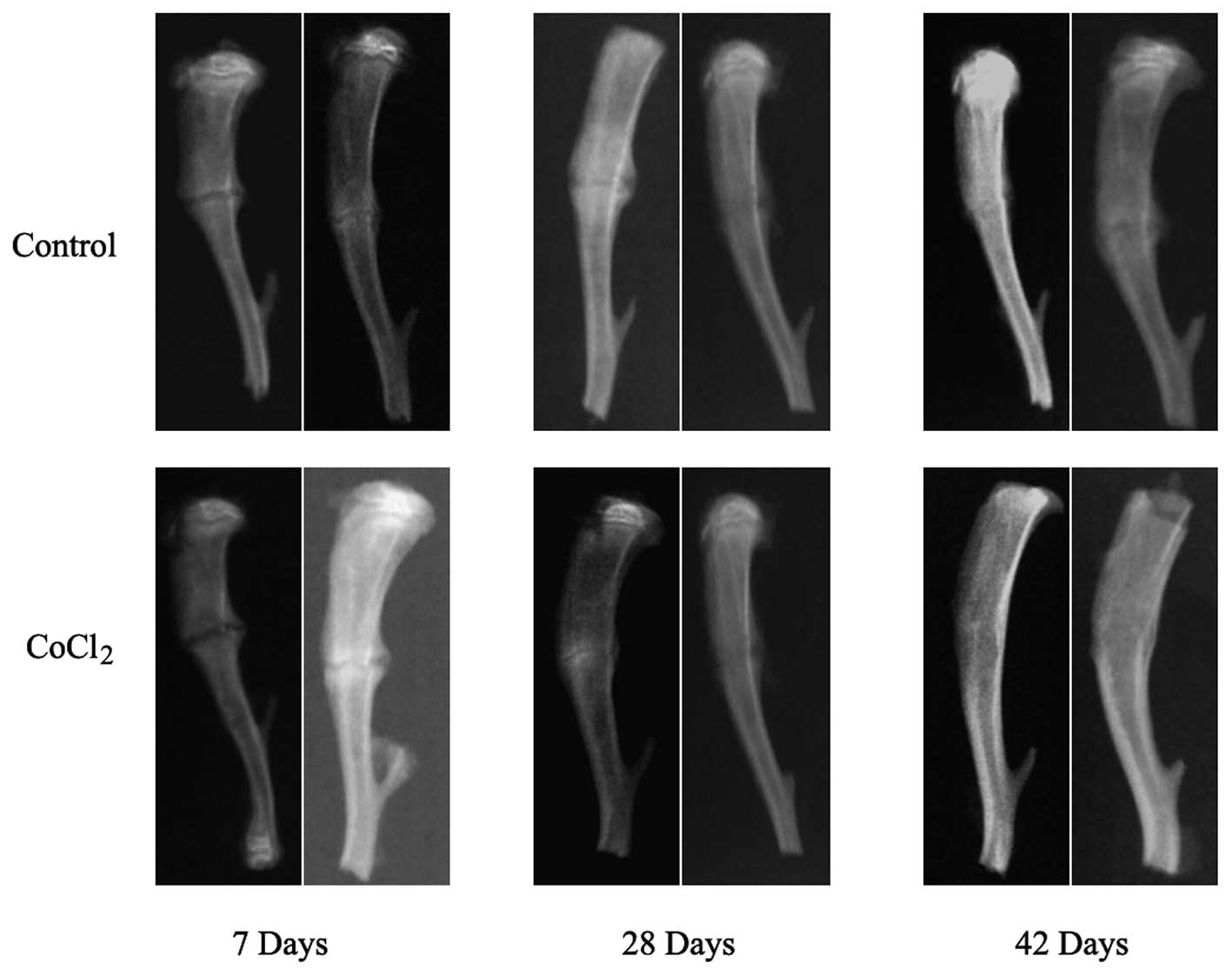 Effect Of Cocl2 On Fracture Repair In A Rat Model Of Bone Fracture