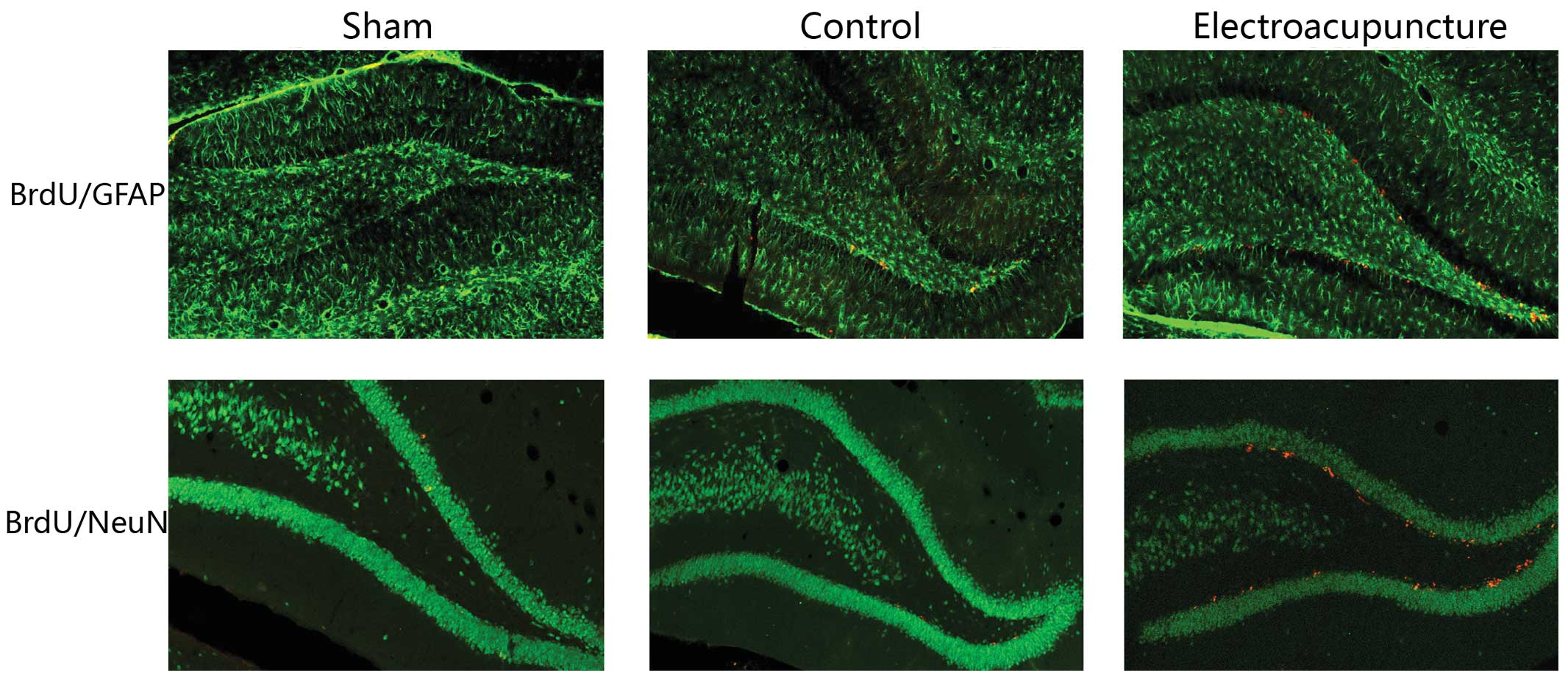 Electroacupuncture Promotes Neural Stem Cell Proliferation