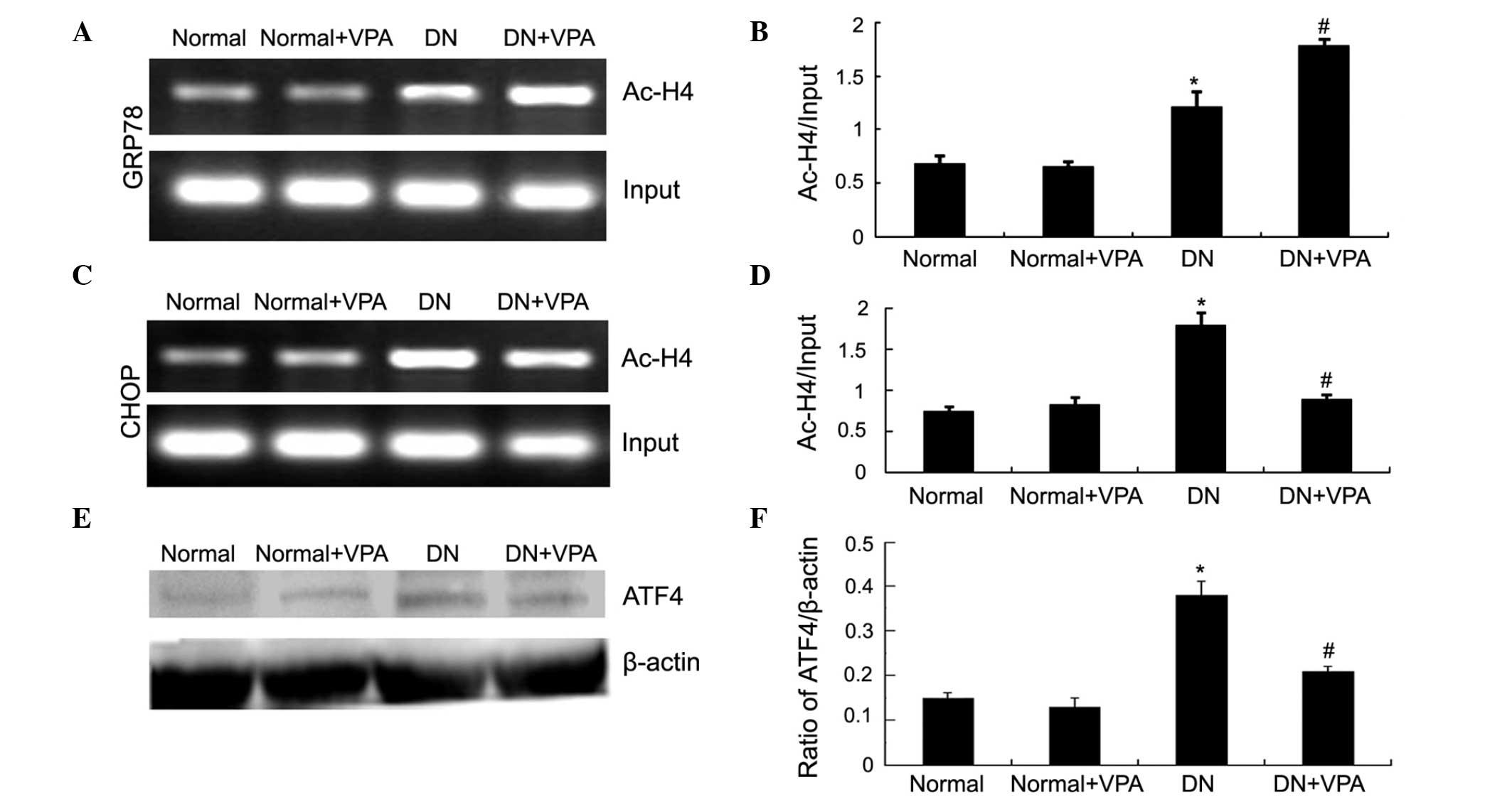 Valproate attenuates diabetic nephropathy through inhibition