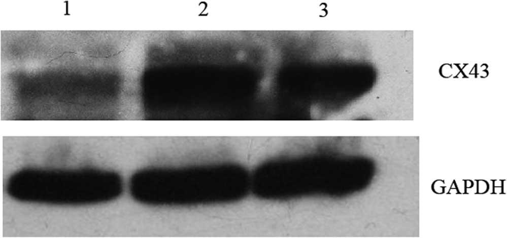 Connexin43 knockdown in bone marrow‑derived dendritic ...