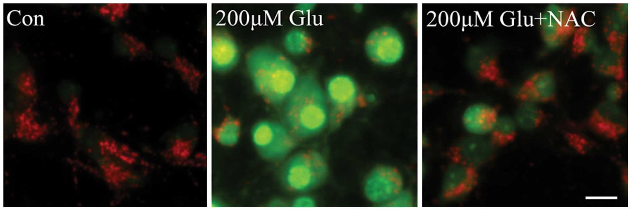 Effect of glutamate on lysosomal membrane permeabilization ...