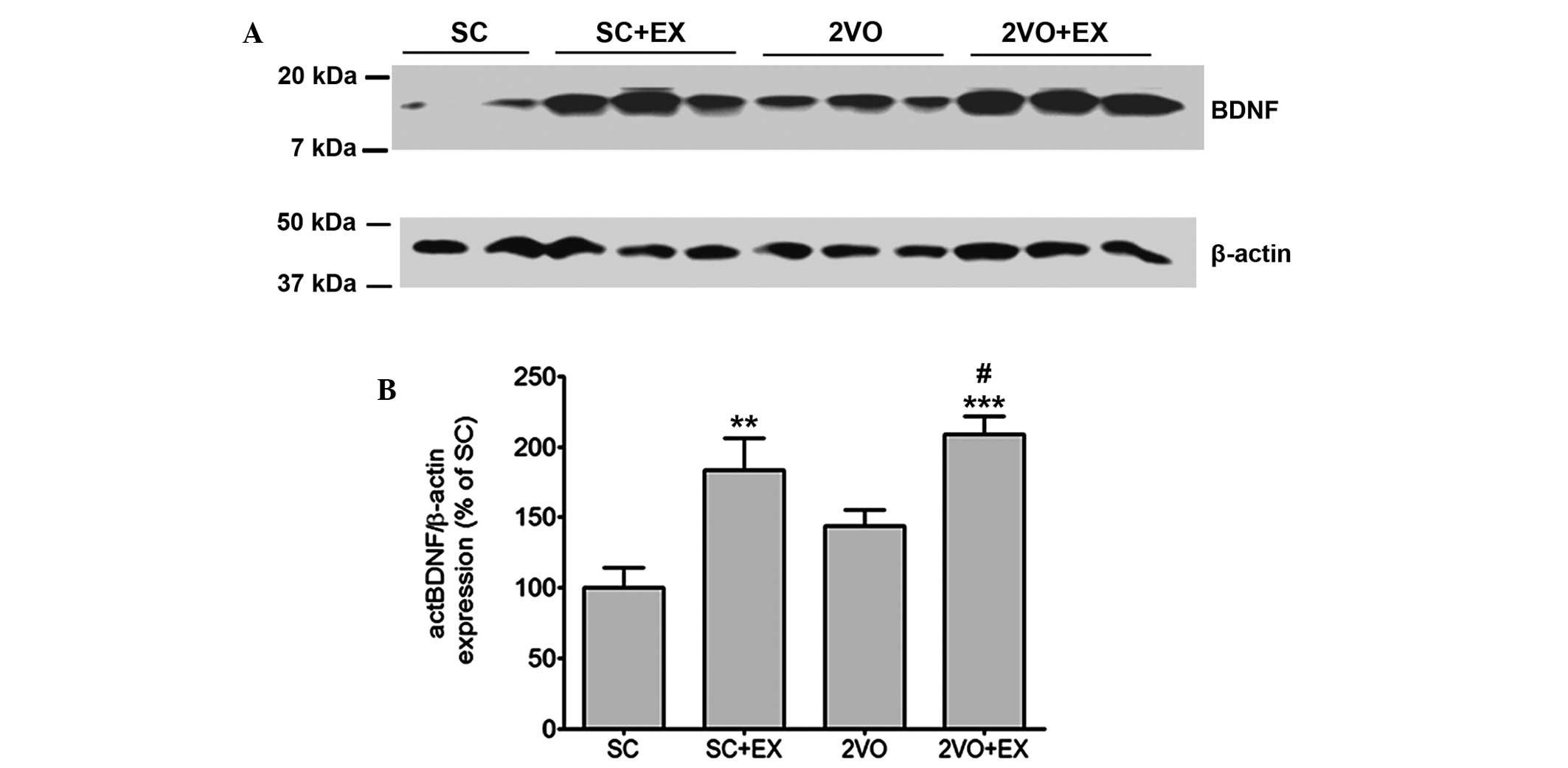 Effect of exercise-induced neurogenesis on cognitive