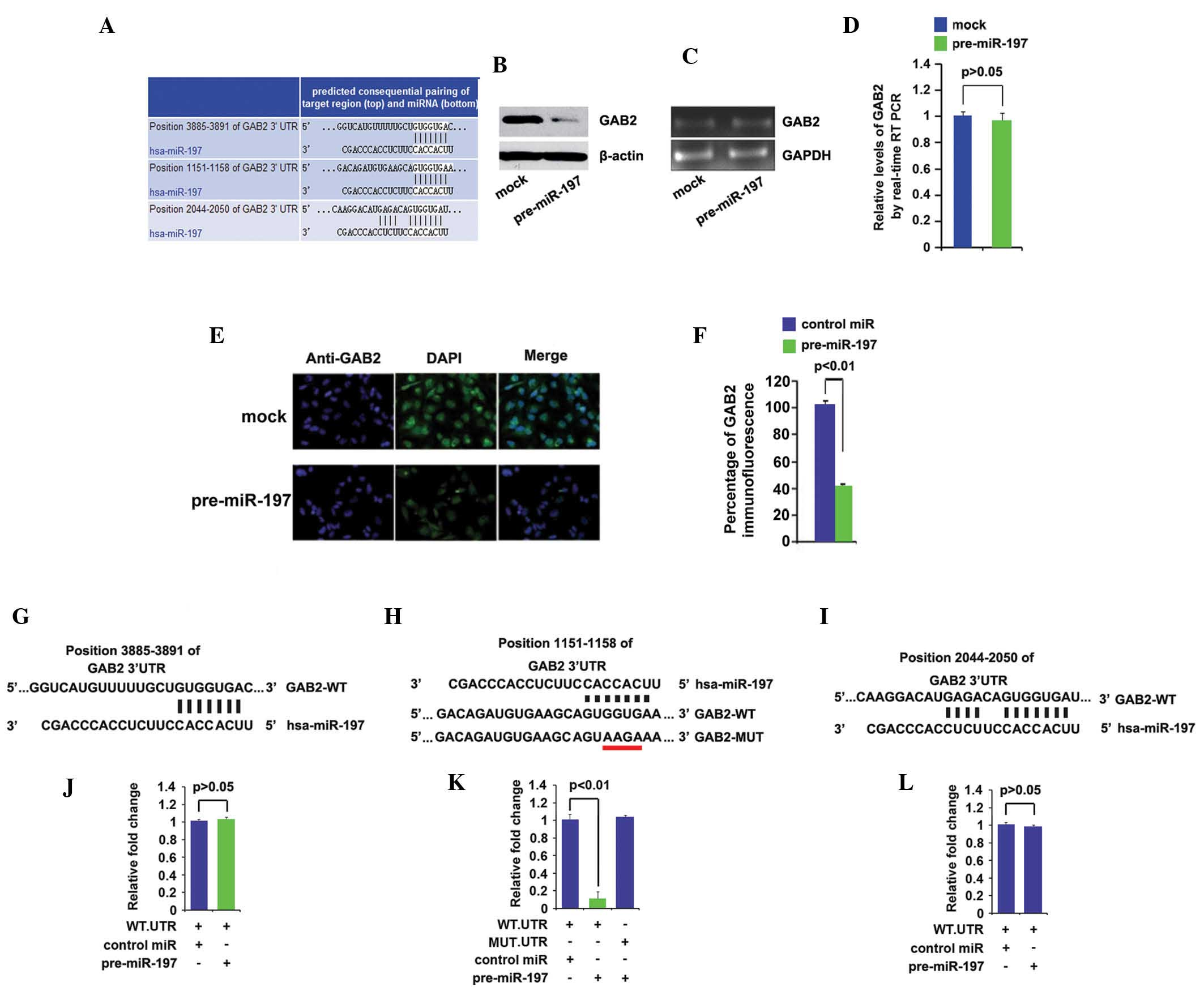 MicroRNA-197 inhibits cell proliferation by targeting GAB2 in ...