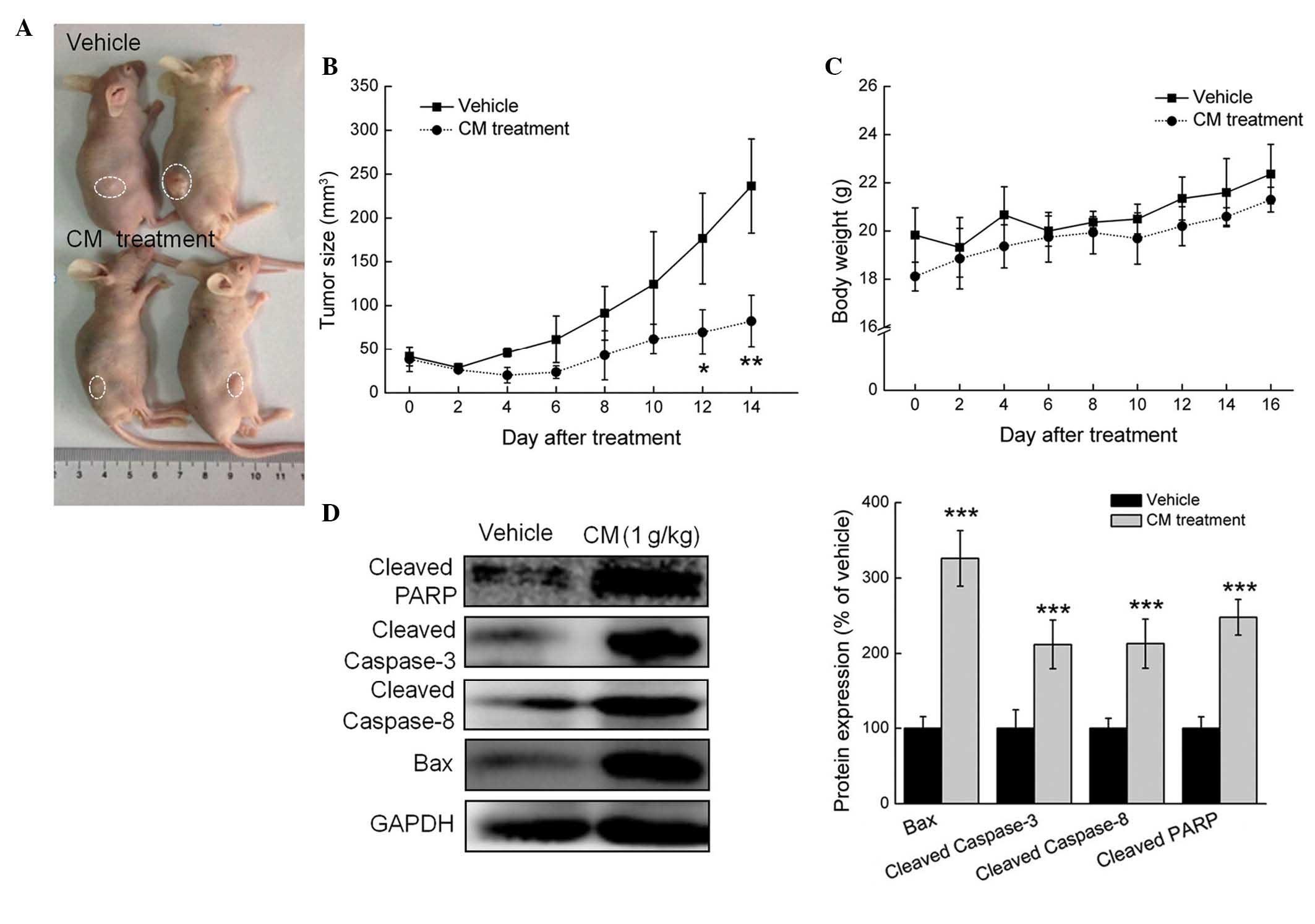 CM has a suppressive effect in the MCF-7-xenograft nude