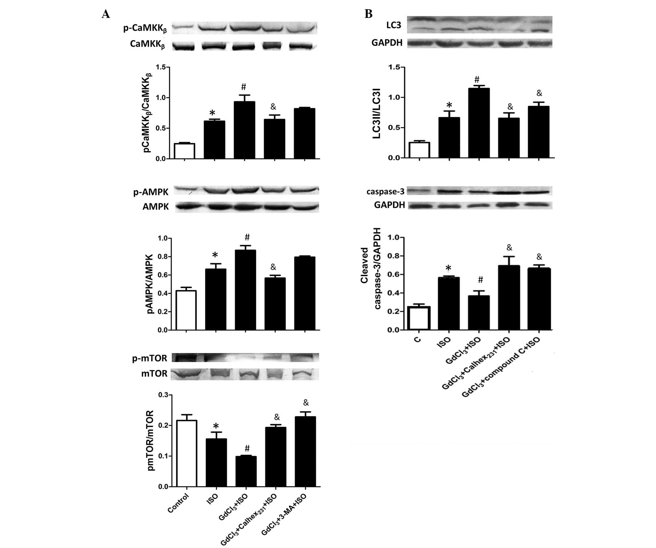 Suppression of calciumsensing receptor ameliorates cardiac effect of calcium sensing receptor on autophagy initiation signaling during iso induced cardiac hypertrophy protein expression levels of a camkk buycottarizona Choice Image