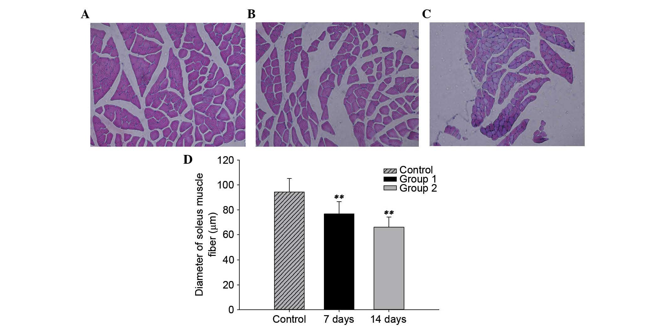 analysis of the glycerinated muscle fiber The effect of phosphate and calcium on force generation in glycerinated rabbit skeletal muscle fibers a steady-state and transient kinetic study.