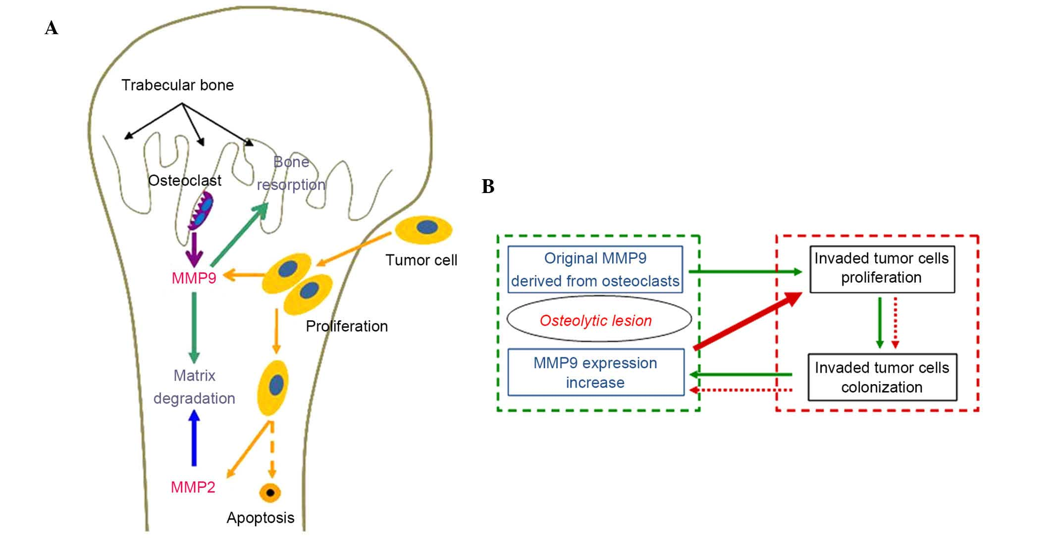 The vicious cycle of metastatic breast cancer in bone