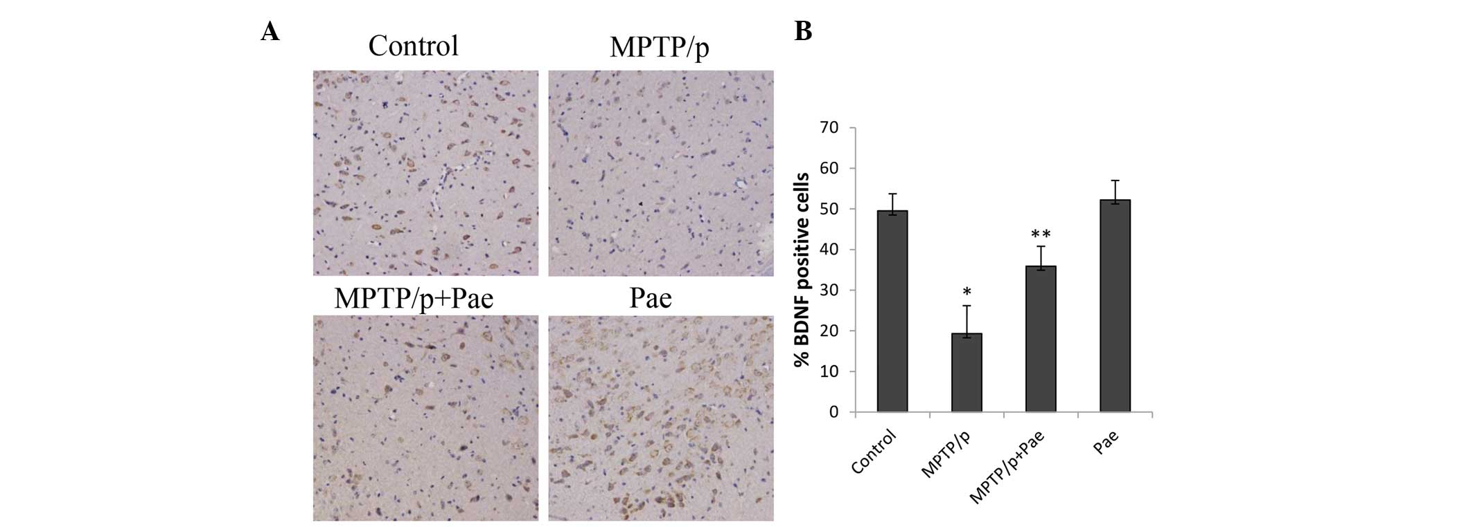 Therapeutic effects of paeonol on methyl-4-phenyl-1,2,3,6
