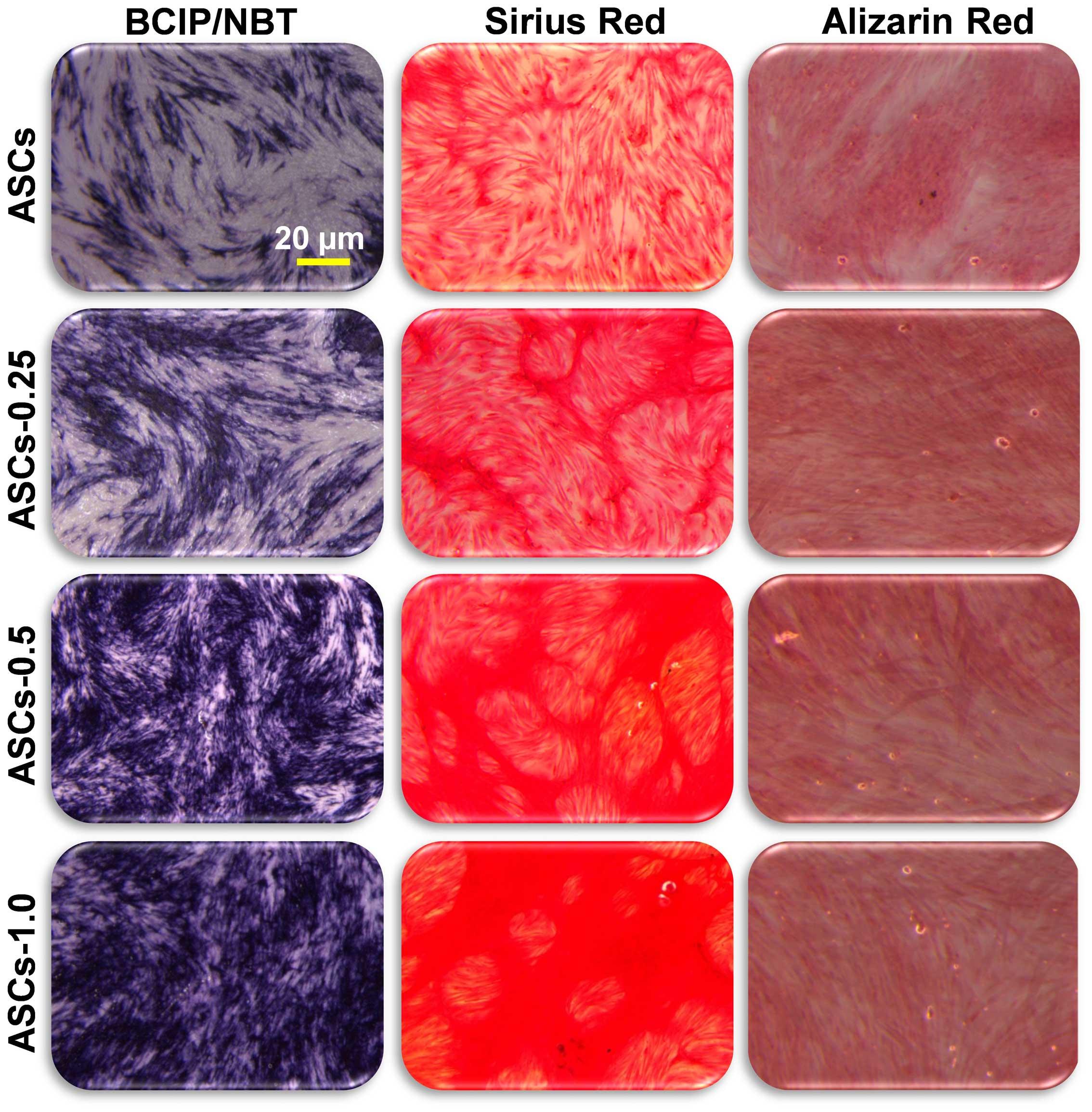 Different staining methods in primary rat osteoblast