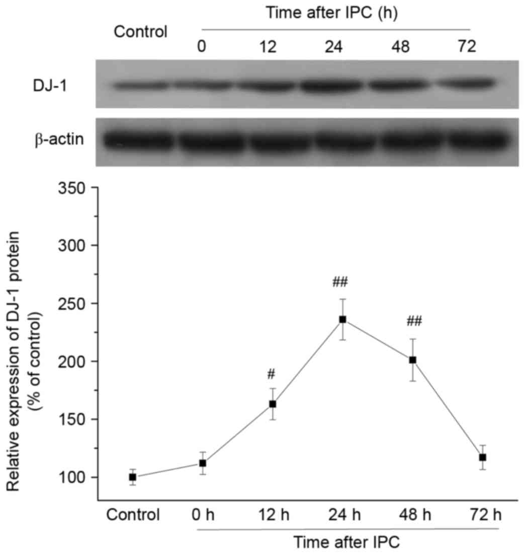 Involvement of DJ‑1 in ischemic preconditioning‑induced