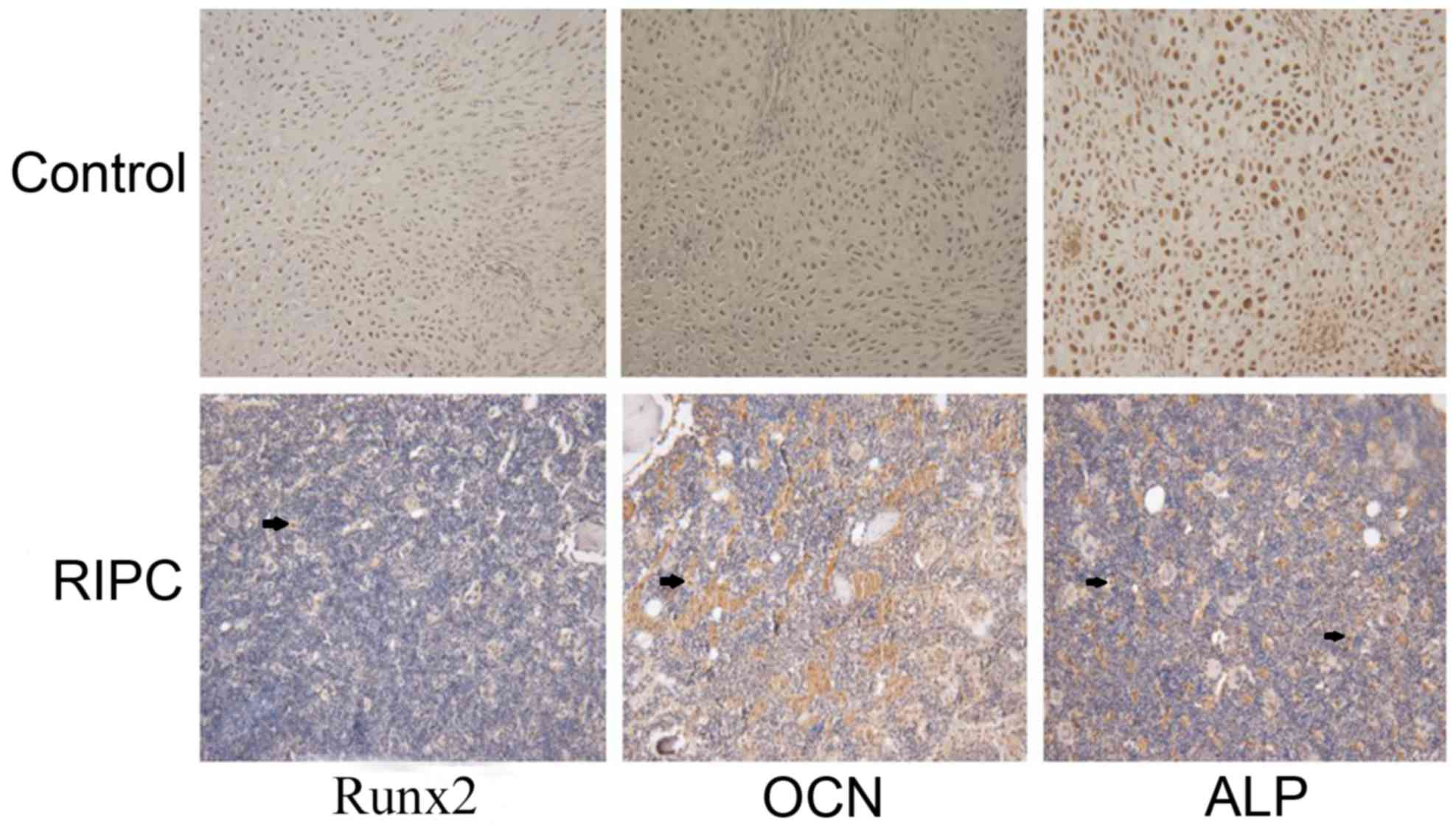 Effects Of Remote Ischemic Postconditioning On Fracture Healing In Rats Wiring Harness 84 Cj7 4 2l Representative Images Immunohistochemical Staining Runx2 Ocn And Alp Bone Tissues 42 Days After Ripc Post Conditioning