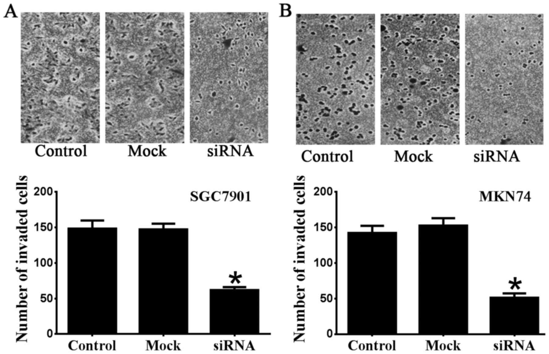 CBX2 depletion inhibits the proliferation, invasion and