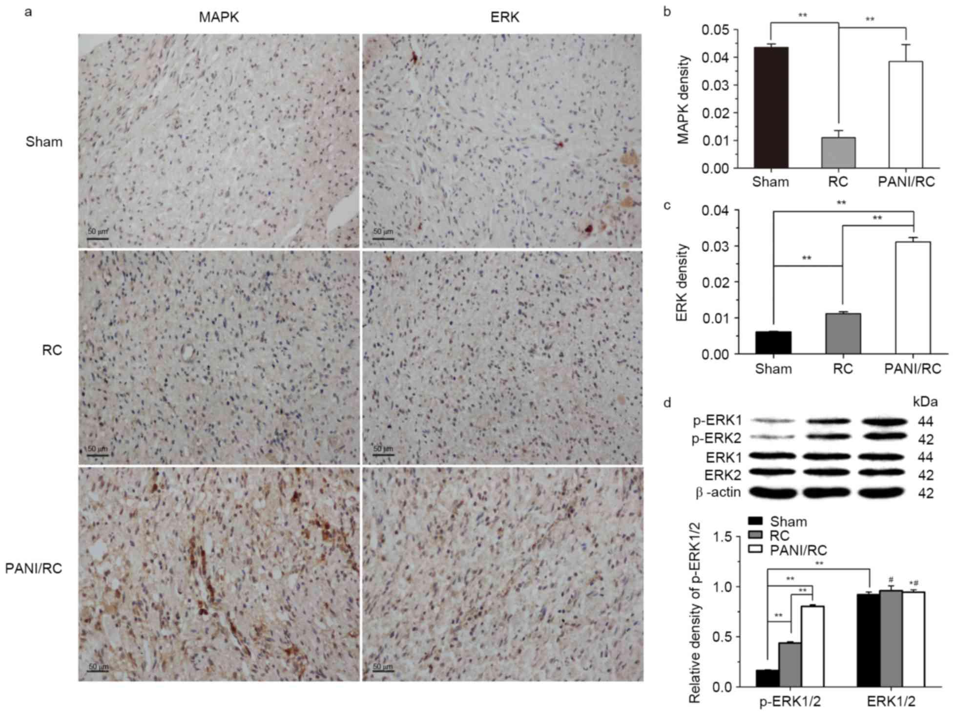 Polyaniline promotes peripheral nerve regeneration by