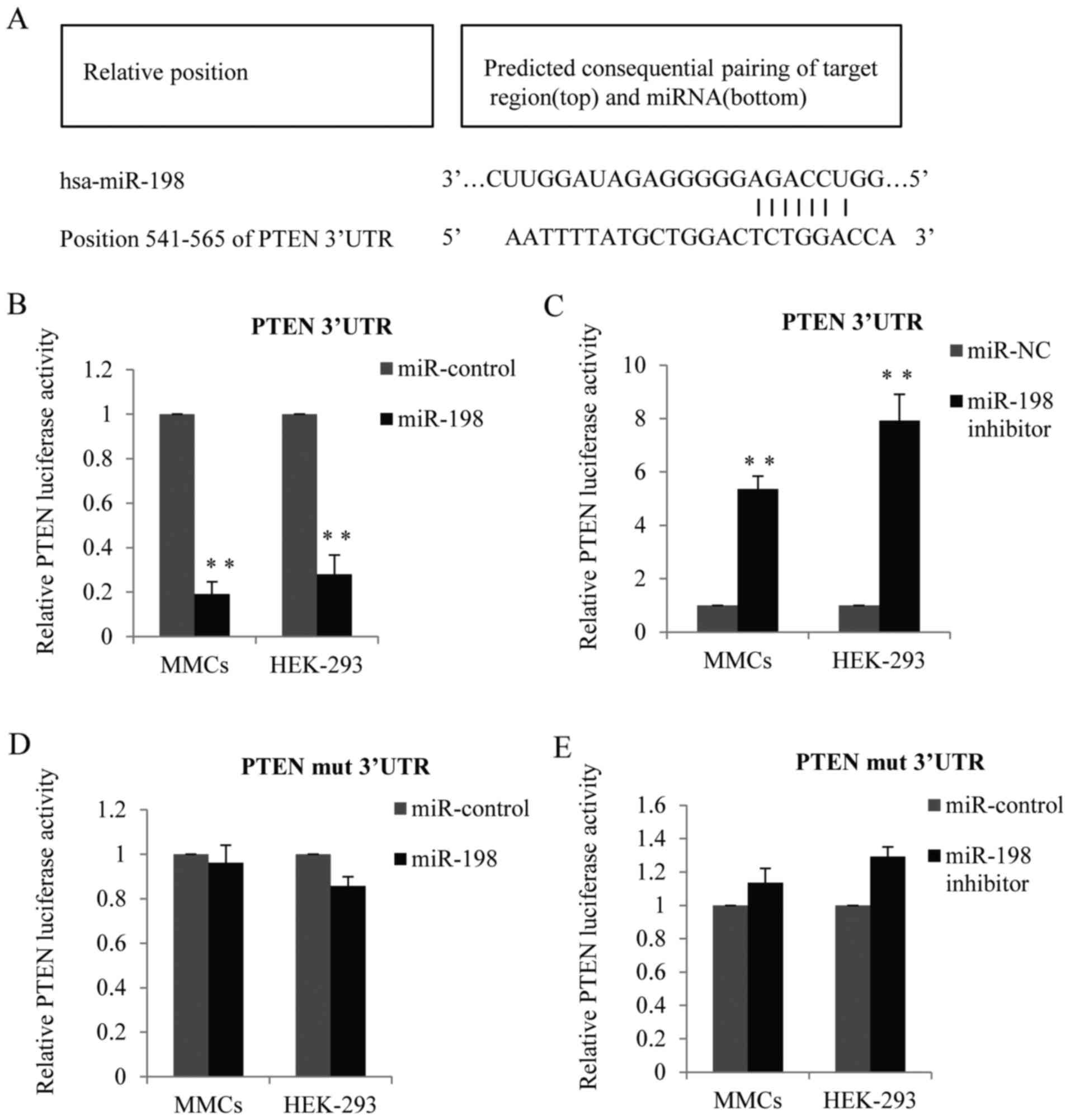 microrna u2011198 contributes to lupus nephritis progression by