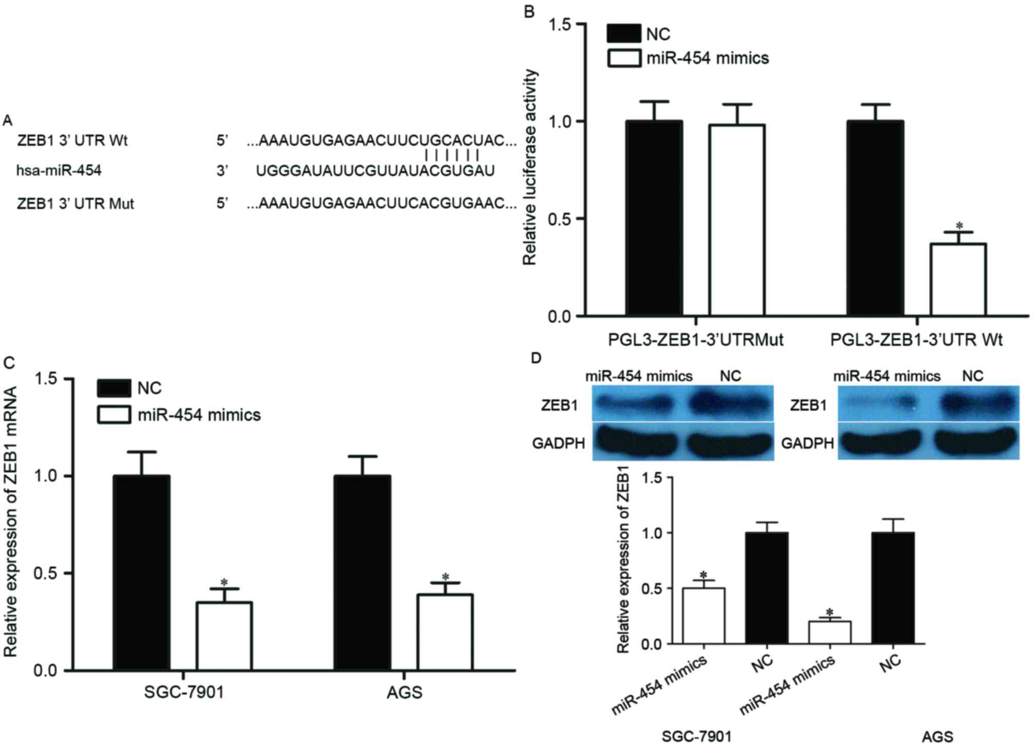 Ags Logistics Pvt Ltd microrna-454 inhibits tumor cell proliferation, migration