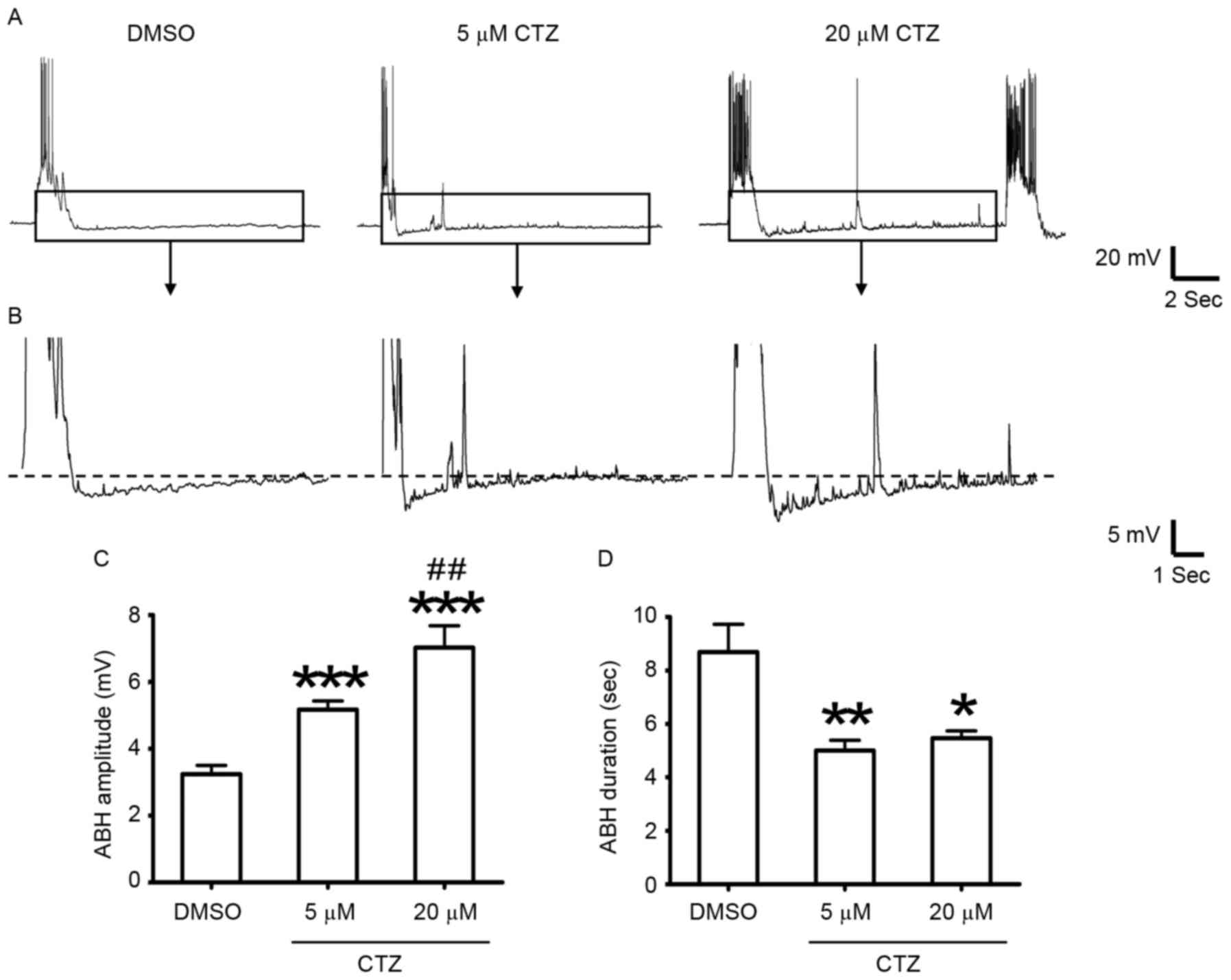Sk Channels Participate In The Formation Of After Burst Heater Wiring Diagram Holmes Get Free Image About Figure 1 Abh Amplitude Increased However Duration Decreased Following Induction Seizures With Ctz Representative Recording Traces
