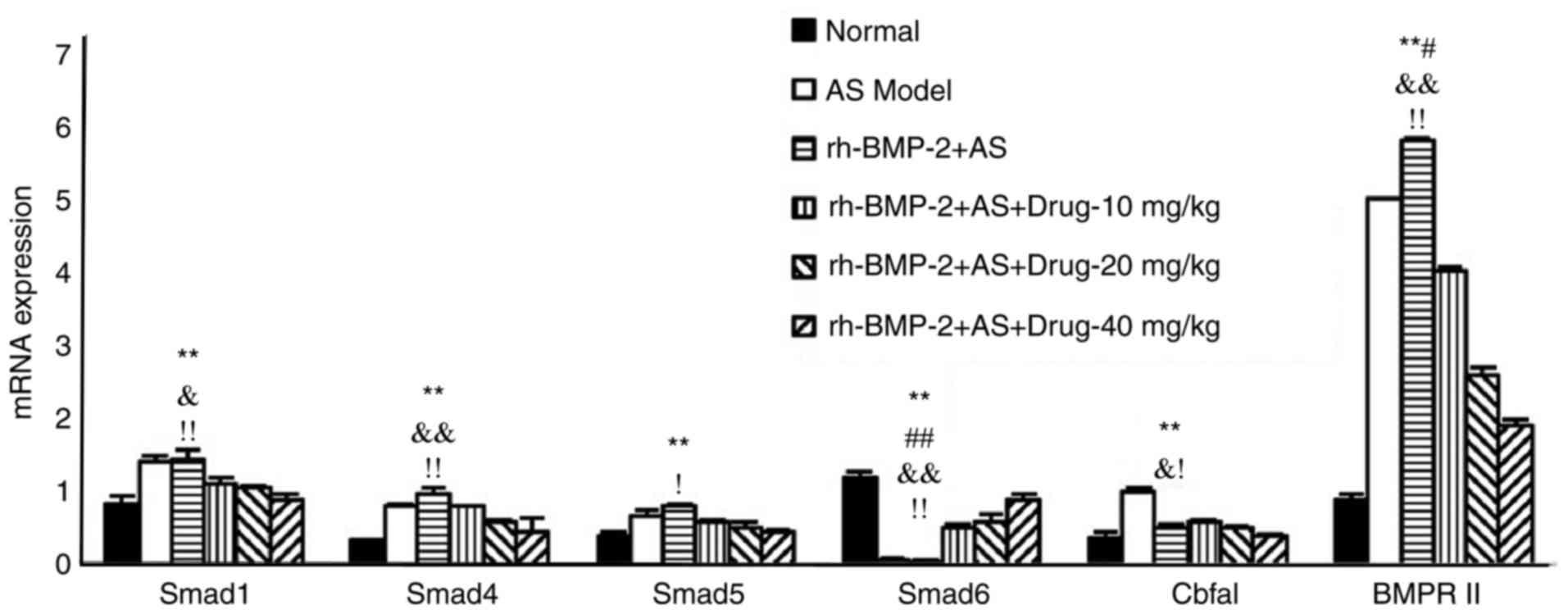 Mechanism of triptolide in treating ankylosing spondylitis