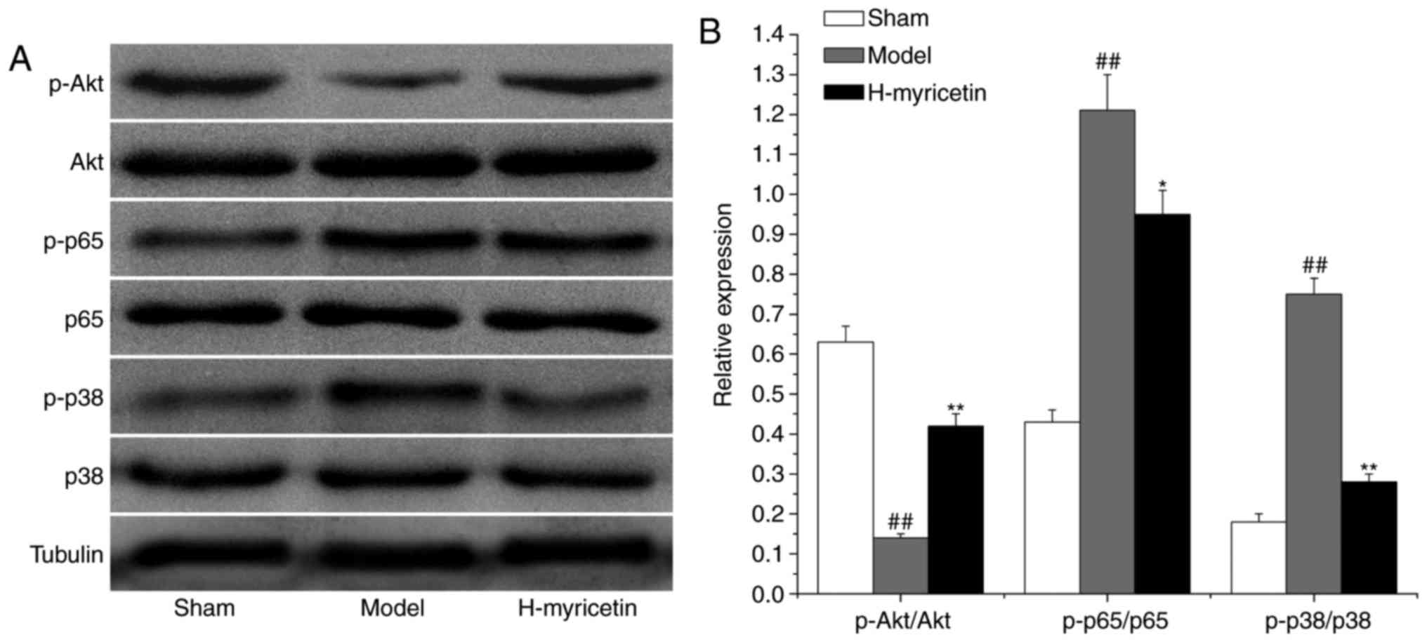 Myricetin against ischemic cerebral injury in rat middle
