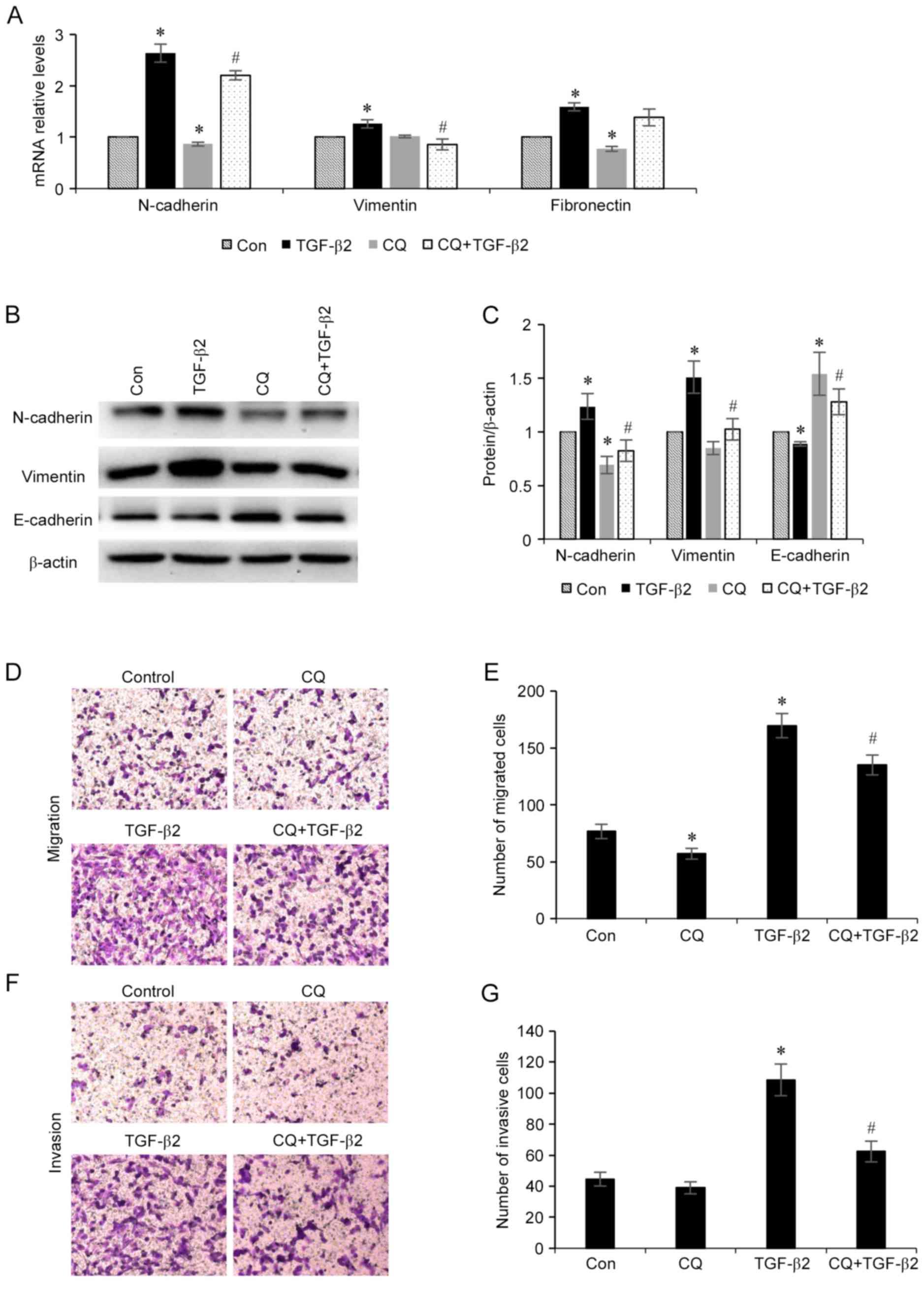 Autophagy regulates TGF-β2-induced epithelial-mesenchymal
